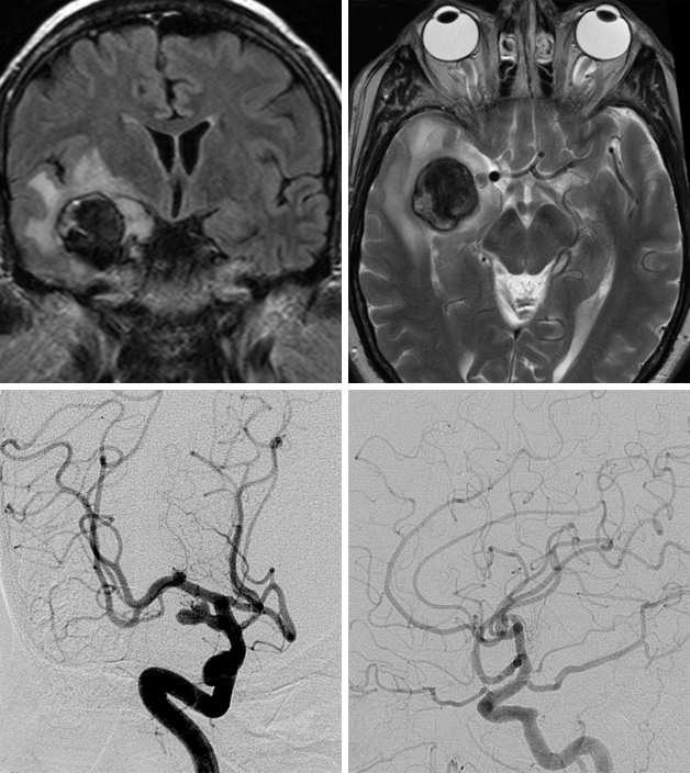 Figure 3: FLAIR ant T2-weighted images (top row) reveal a partially thrombosed giant PCoA aneurysm with associated surrounding edema. Angiogram images of the right ICA show the living part of the aneurysm originating from the fetal type PCoA (left, bottom row). Postoperative angiogram demonstrates total obliteration of the aneurysm with preservation of the relevant cerebral vasculature (right, bottom row).
