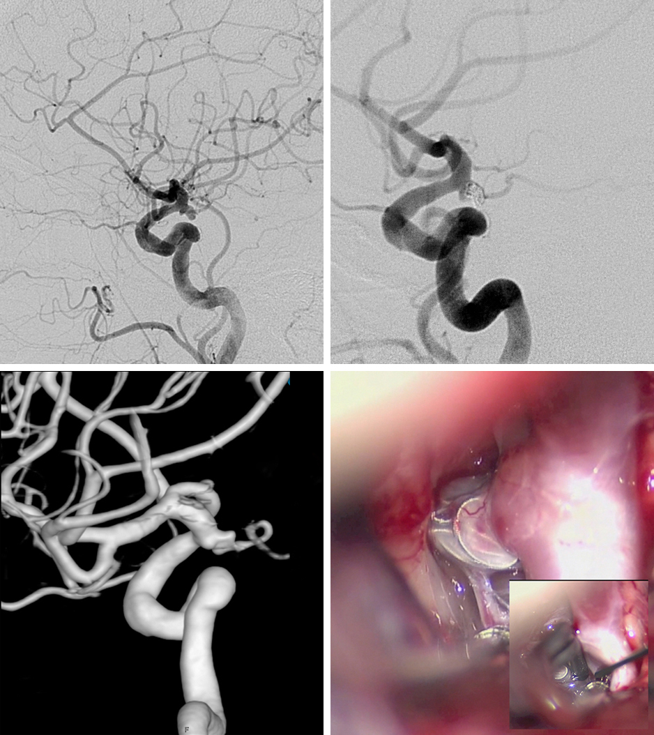 Figure 4: Coil embolization of a ruptured PCoA aneurysm was accomplished (top row), however; aneurysmal regrowth at the neck was apparent 2 years later (bottom, left). Intraoperative findings for clip ligation of the recurrent aneurysm are shown (bottom, right). After application of the bayoneted clip, ICG angiography confirmed aneurysmal obliteration and PCoA patency.