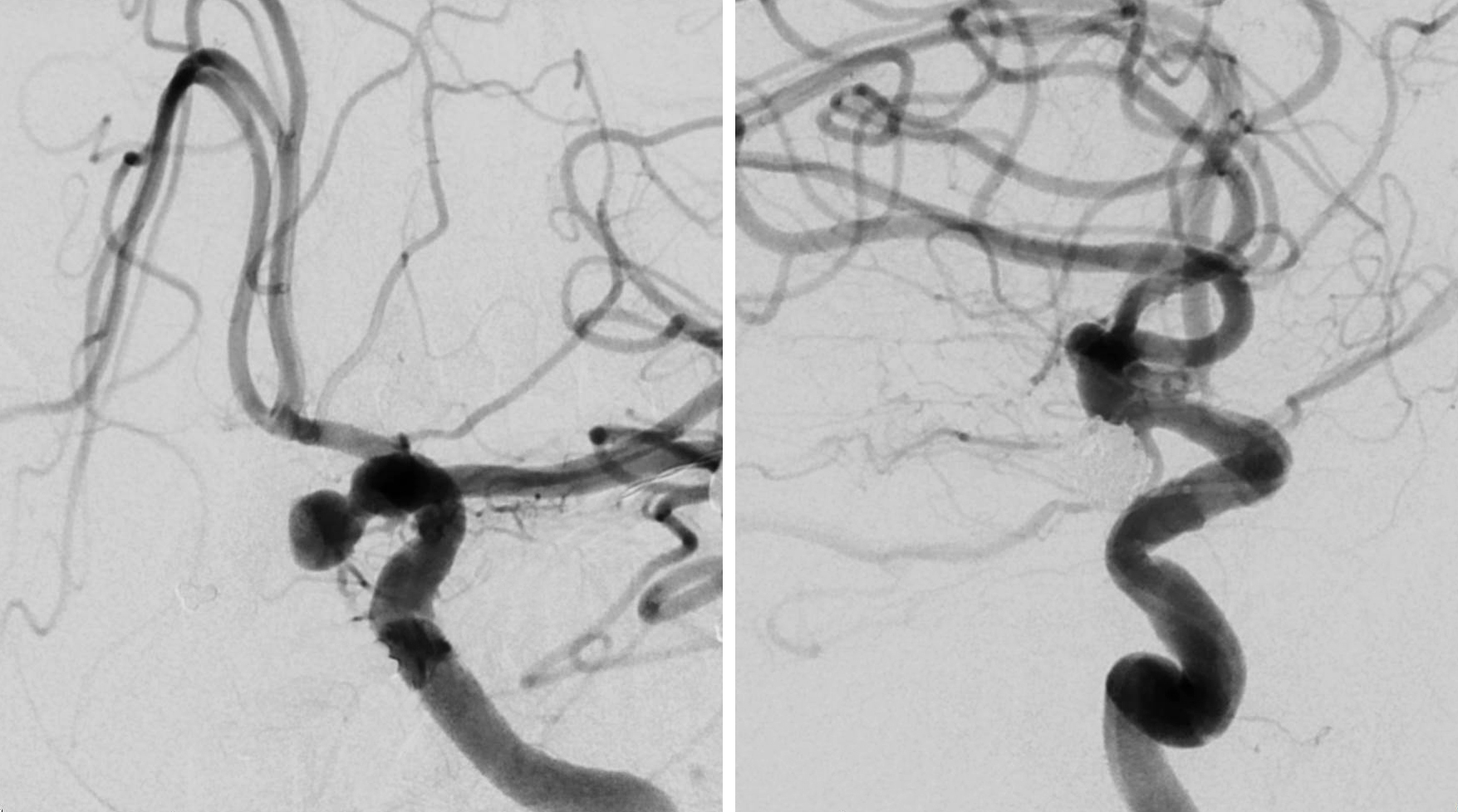Figure 6: Preoperative (L) and postoperative (R) angiograms demonstrate the effective exclusion of the aneurysm with preservation of the PCoA.