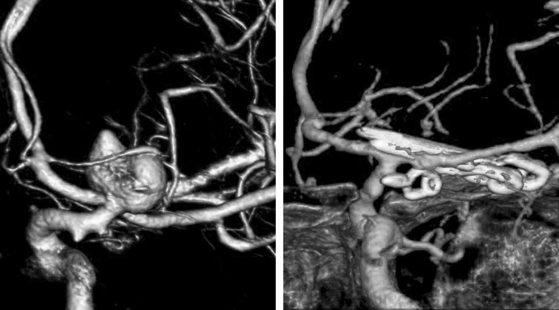 Figure 7: Clip ligation was the most durable option in this young patient to exclude the larger aneurysm and to attempt to also ligate the small aneurysm not amenable to endovascular intervention.