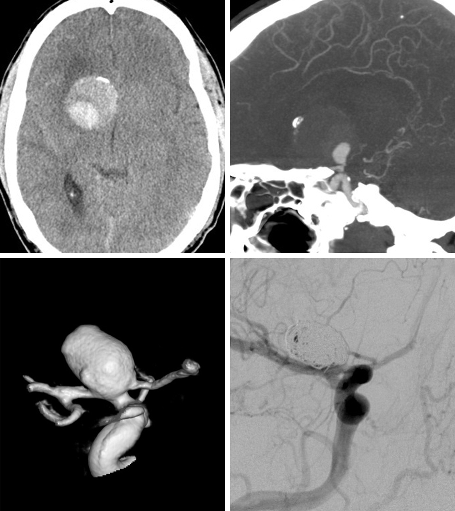 Figure 8: Partial calcification and thrombosis of the aneurysm is apparent (top row). Stent-assisted coiling (bottom row) was accomplished uneventfully.