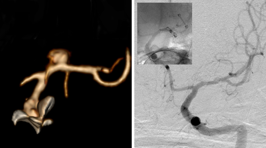 Figure 10: 3D angiogram (left) reveals a left-sided lentriculostriate artery aneurysm associated with a lentriculostriate artery by the origin of the aneurysm. Postoperative DSA shows the position of the angled fenestrated clip (right, inset) and total obliteration of the aneurysm with preservation of the lenticulostriate arteries (right).