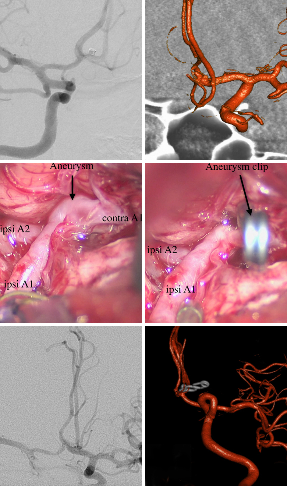 Figure 14: Angiography performed at the time of the initial coiling is shown (top, left). The patient presented three year later with recurrent SAH and persistent minimal residual filling of the aneurysm. Intraoperative picture of the aneurysm before (middle, left) and after clipping (middle, right) are included. Postoperative angiography confirmed complete obliteration of the aneurysm (bottom images).