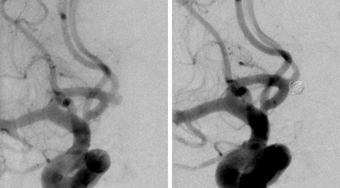 Figure 15: A right ICA angiogram reveals a small, broad-based ACoA aneurysm (left). Postoperative imaging confirms adequate obliteration (right).