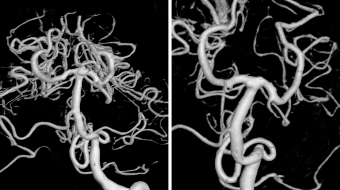 Figure 1: Three-dimensional (3D) reconstruction of the digital subtraction angiography (DSA) shows an anteriorly-projecting high-riding basilar bifurcation aneurysm with a wide neck (left). Postoperative imaging reveals complete obliteration of the aneurysm (right).