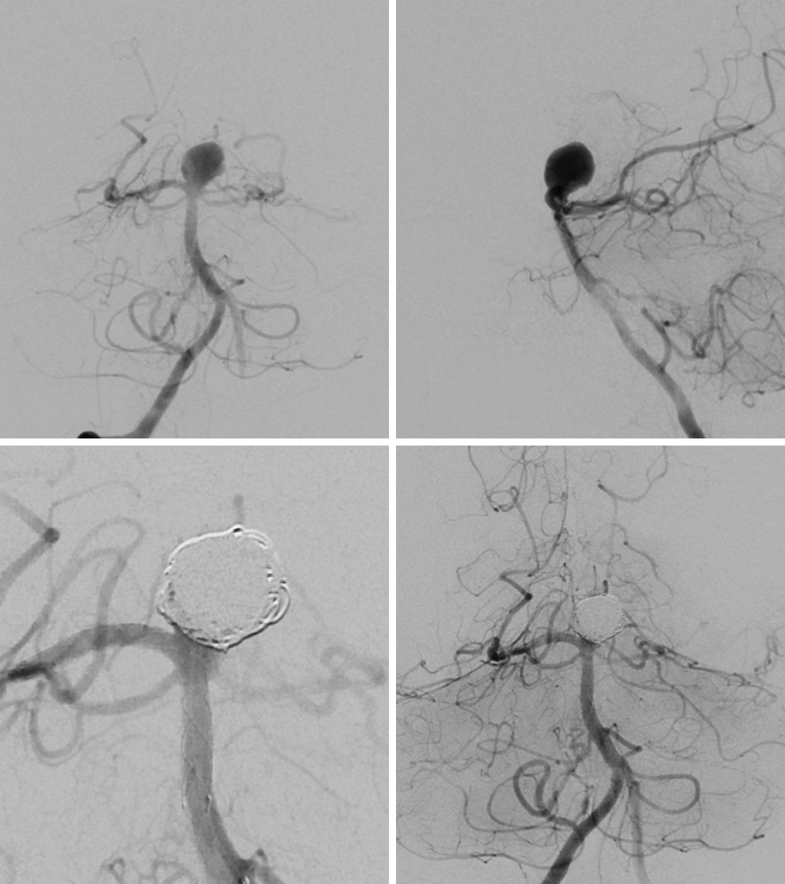 Figure 2: The basilar bifurcation aneurysm is demonstrated on AP and lateral angiography (top row). Postprocedural imaging reveals Raymond grade 3 embolization (bottom row).