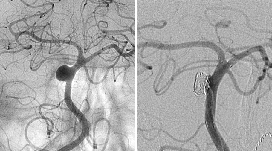 Figure 3: DSA of the posterior circulation shows a dissecting basilar artery aneurysm. The postoperative angiography shows Raymond grade 3 obliteration. There is no good surgical option available for this lesion.