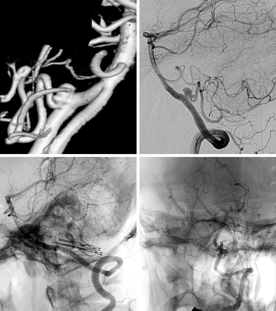 Figure 4: Angiography shows an aneurysm at the origin of the PICA (top row). The small caliber and therefore vulnerable PICA emerges from the neck of the aneurysm. Postoperative angiogram confirms complete obliteration of the aneurysm via two clips (bottom row).