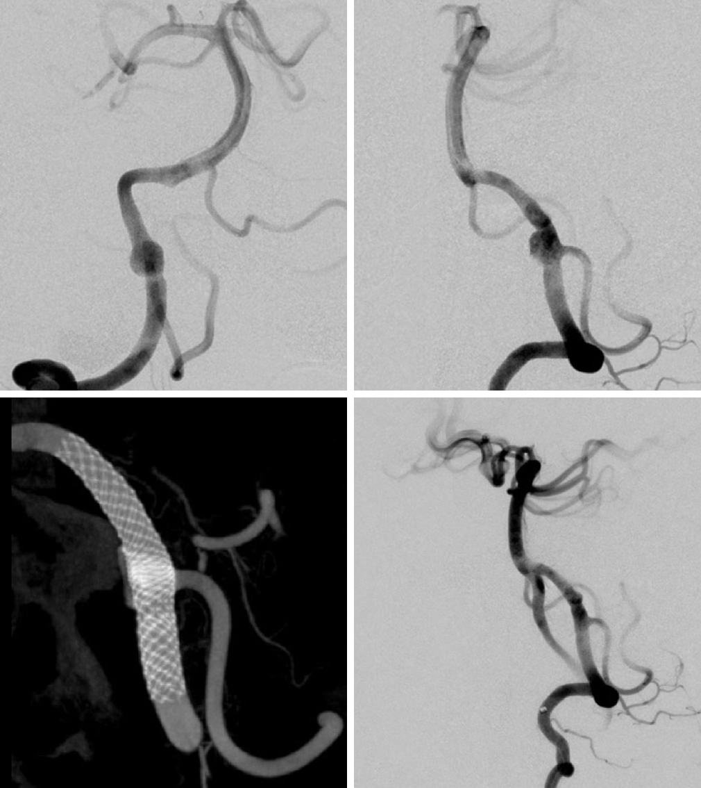 Figure 7: A right VA angiogram demonstrates a dissecting aneurysm at the PICA origin (top row). Three-dimensional reconstruction of the Dyna CT shows good compression of the device at the level of the aneurysm (left lower image). A postoperative angiogram confirms obliteration of the aneurysm (right lower image).