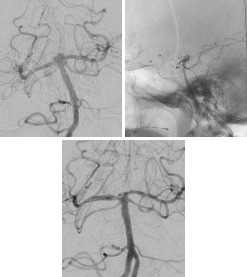 Figure 8: A basilar apex and left SCA aneurysm are shown (left upper corner). The bone window on the right reveals the high-riding basilar apex that was not readily accessible during microsurgical clip ligation of the SCA aneurysm (right upper corner). Postoperative angiogram demonstrates successful obliteration of the SCA and basilar apex aneurysms (bottom image).