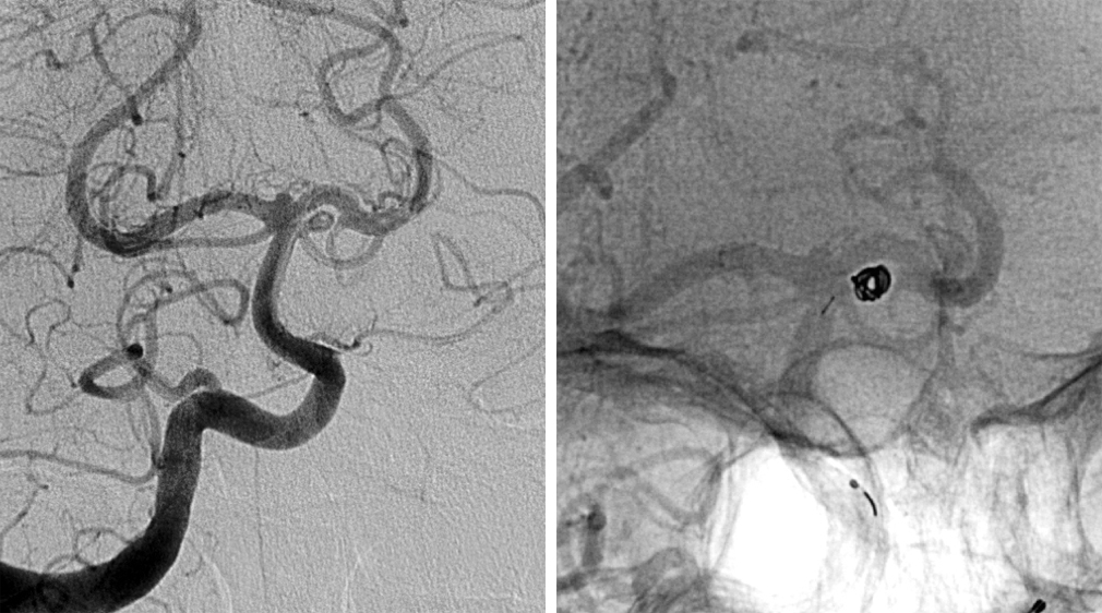 Figure 9: A left SCA aneurysm is evident (left). Angiogram after coiling demonstrates obliteration of the aneurysm with preservation of the normal vasculature (right).
