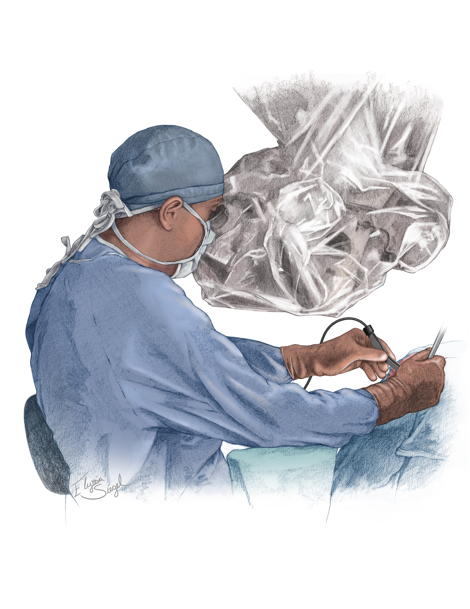 Figure 3: The proper operating position: one of the most overlooked considerations in patient safety is the surgeon's comfort. Standing may lead to arm and hand fatigue, whereas a sitting position allows the use of armrests and promotes relaxed and steady hands. Comfortable positions also improve surgical technique by eliminating nondeliberate and unintentional dissection maneuvers. The wrists should be able to hang slightly from the armrests.