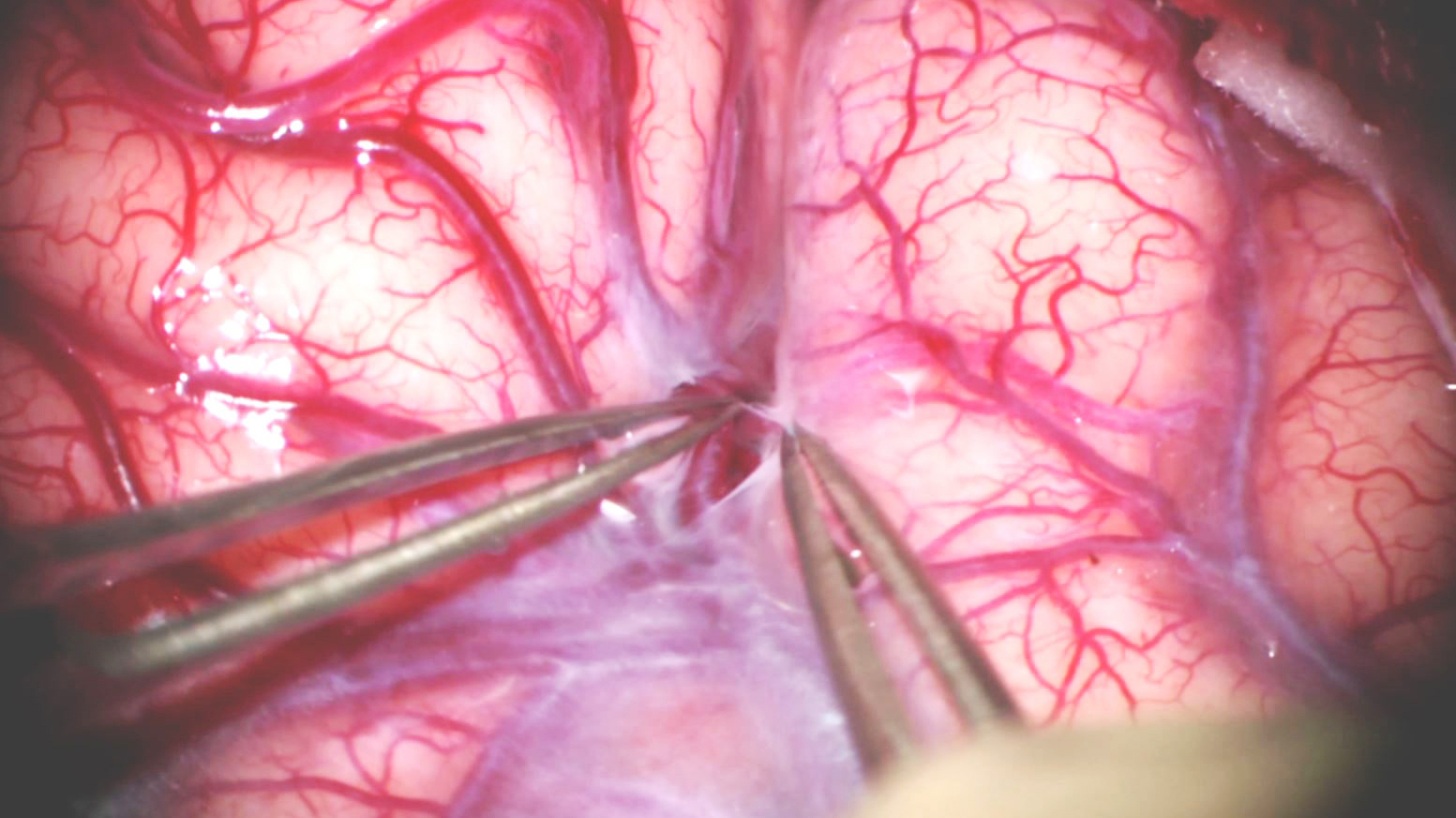 Figure 1: Sylvian fissure split unveils the world of subarachnoid dissection that defines aneurysm surgery.