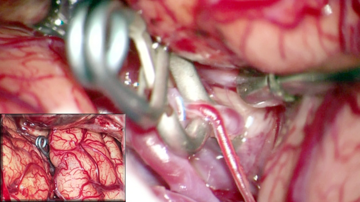 Figure 1: Generous dissection of the Sylvian fissure allows atraumatic clip ligation of cerebral aneurysms (inset) using dynamic retraction.