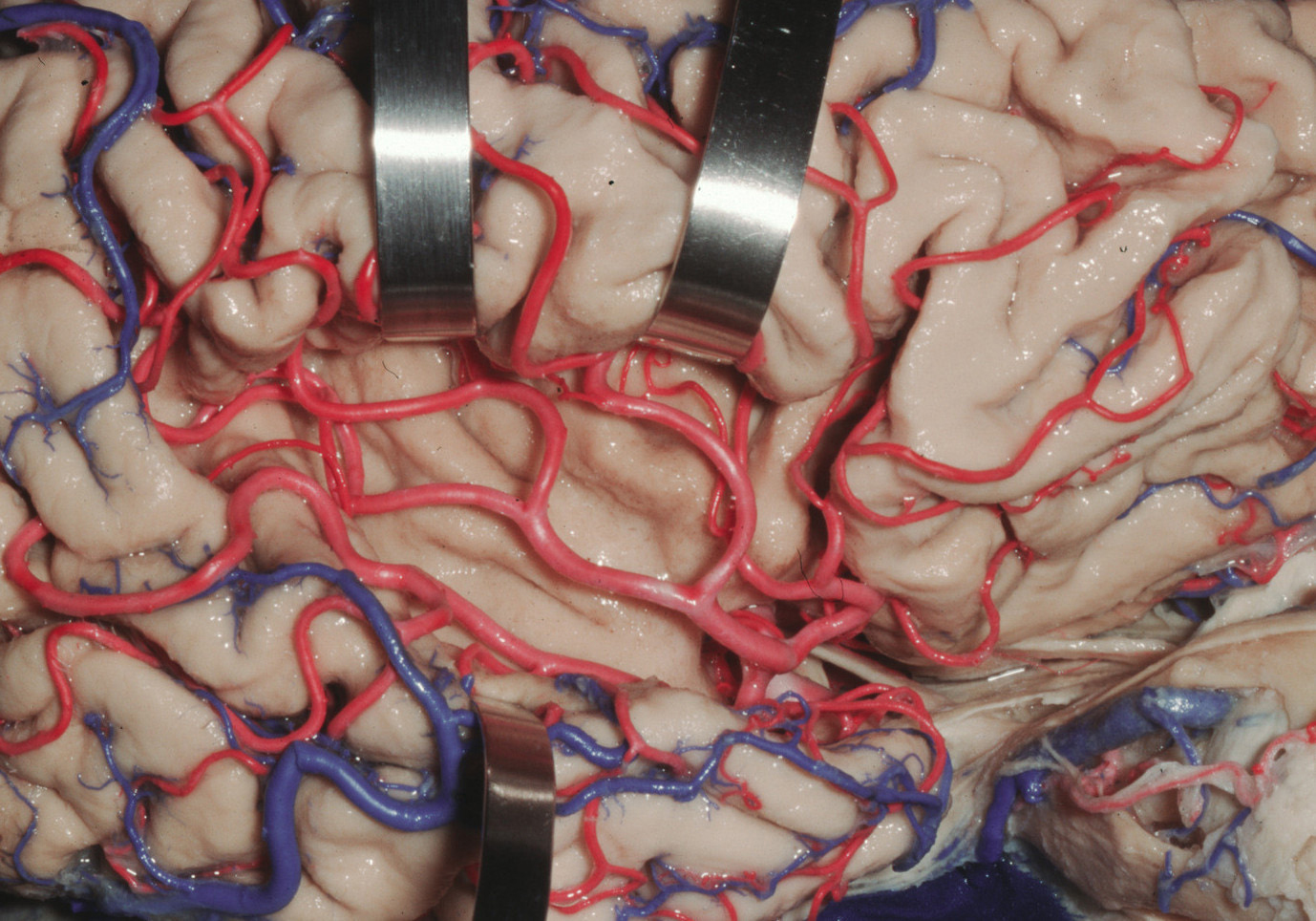 Figure 2: The Sylvian fossa contains the MCA and is the space just lateral to the insula (image courtesy of AL Rhoton, Jr).
