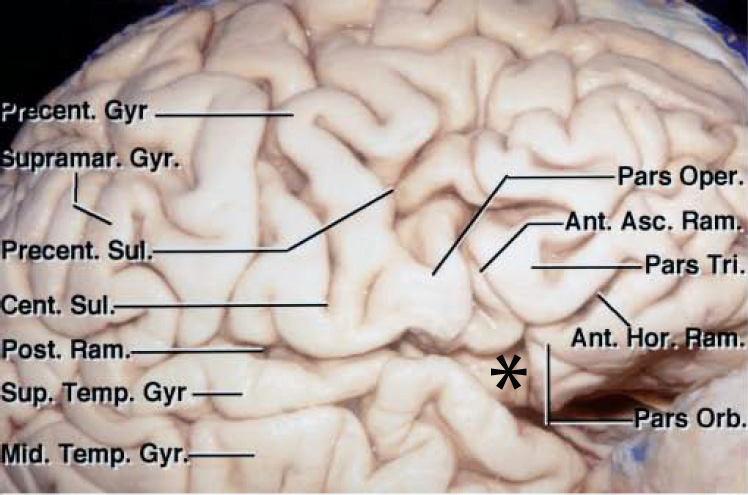 "Figure 3: The Sylvian point is marked with *. The horizontal and ascending rami divide the inferior frontal gyrus into the pars orbitalis, pars triangularis, and pars opercularis. The Sylvian fissure contains several interopercular sulci between the opercular surfaces of lateral orbital, inferior frontal, inferior parietal, and superior temporal gyri. These sulci are often oblique and curved due to opposition of the adjacent gyri. This configuration of the sulci makes fissure dissection a demanding task requiring the surgeon's patience (image courtesy of AL Rhoton, Jr).  The length of the fissure proximal to the Sylvian point is considered the ""proximal"" fissure and the corresponding length distal to this point is called the ""distal fissure."" Most cases need a proximal Sylvian fissure dissection."