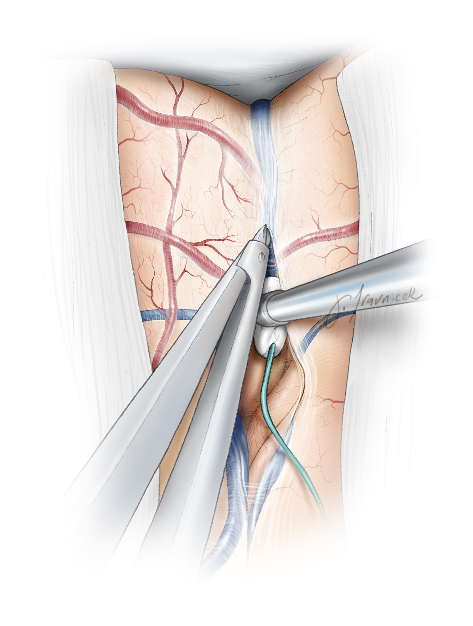 Step 2: The very superficial thick arachnoid layer encasing the veins may be disrupted using fine forceps or microscissors. A microcotton ball is used to keep the dissection planes open and avoid direct contact between the suction tip and the pial surfaces.