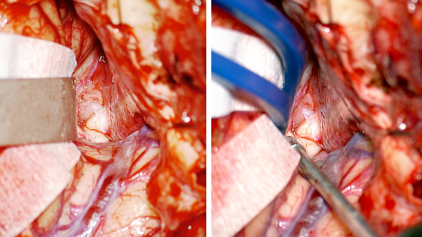 Figure 1: The use of a fixed retractor blade (left) and dynamic retraction (using bipolar forceps and suction device, right) for a subfrontal trajectory and exposure of the optic nerve is compared. Dynamic retraction places the brain under less tension due to a more distributed retraction pressure.