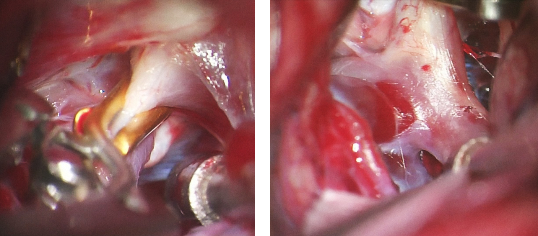 Figure 2: A temporary clip is being placed across the internal carotid artery at the skull base (left image) in expectation of deflation of a complex multilobulated posterior communicating artery aneurysm (right image). The upper pole of this aneurysm's dome is adherent to the lateral carotid wall. Deflation of this complex aneurysm allows expanded working angles around the neck for deployment of the permanent clip while protecting the origin of the posterior communicating artery.