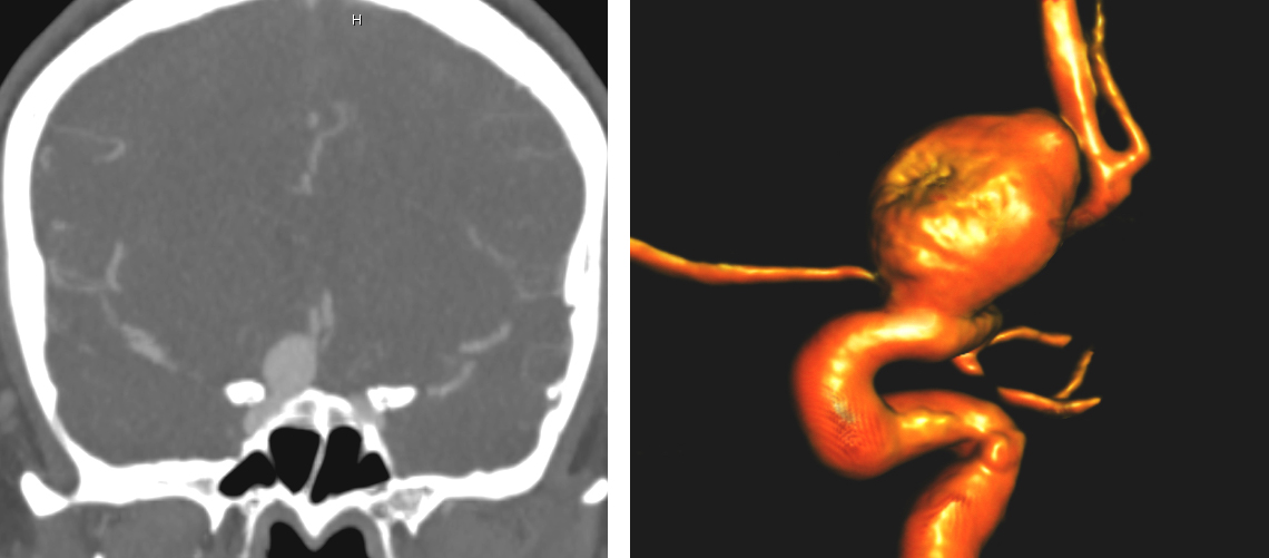 Figure 1: A large right-sided ophthalmic aneurysm is demonstrated. Note the intimate relationship of the anterior clinoid process (left) and the ophthalmic artery's origin (right).