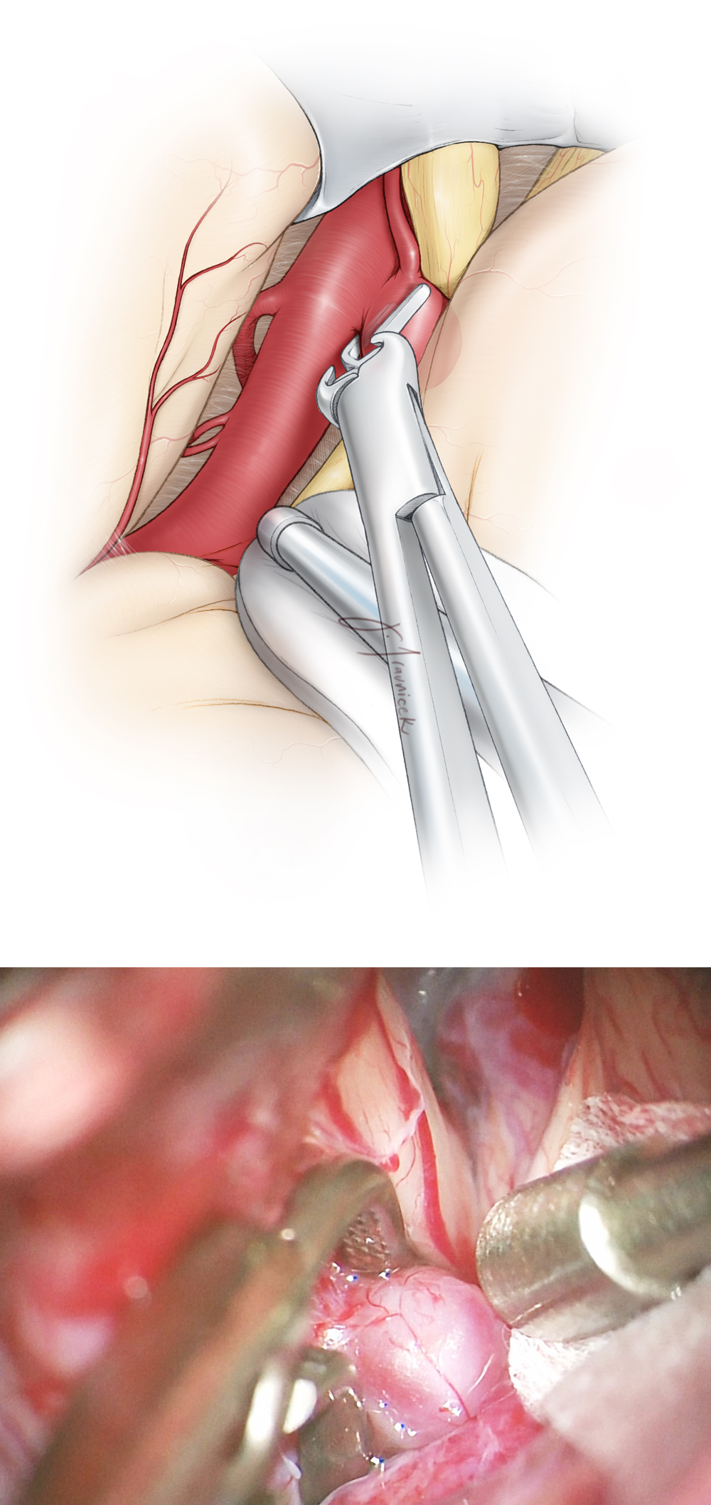 Figure 5: Although small ophthalmic artery aneurysms can be ligated with a straight or curved clip, I prefer to use side-angled clips for all such aneurysms regardless of their size or complexity (including partially atherosclerotic or thrombotic aneurysms). Side-angled clips orient the blades parallel to the long axis of the parent ICA and allow efficient neck closure without causing accordion-like shortening of the carotid trunk.  A perpendicular clipping technique across the ICA leads to partial neck closure, hemodynamic turbulence within the sac, and potentially intraoperative rupture.