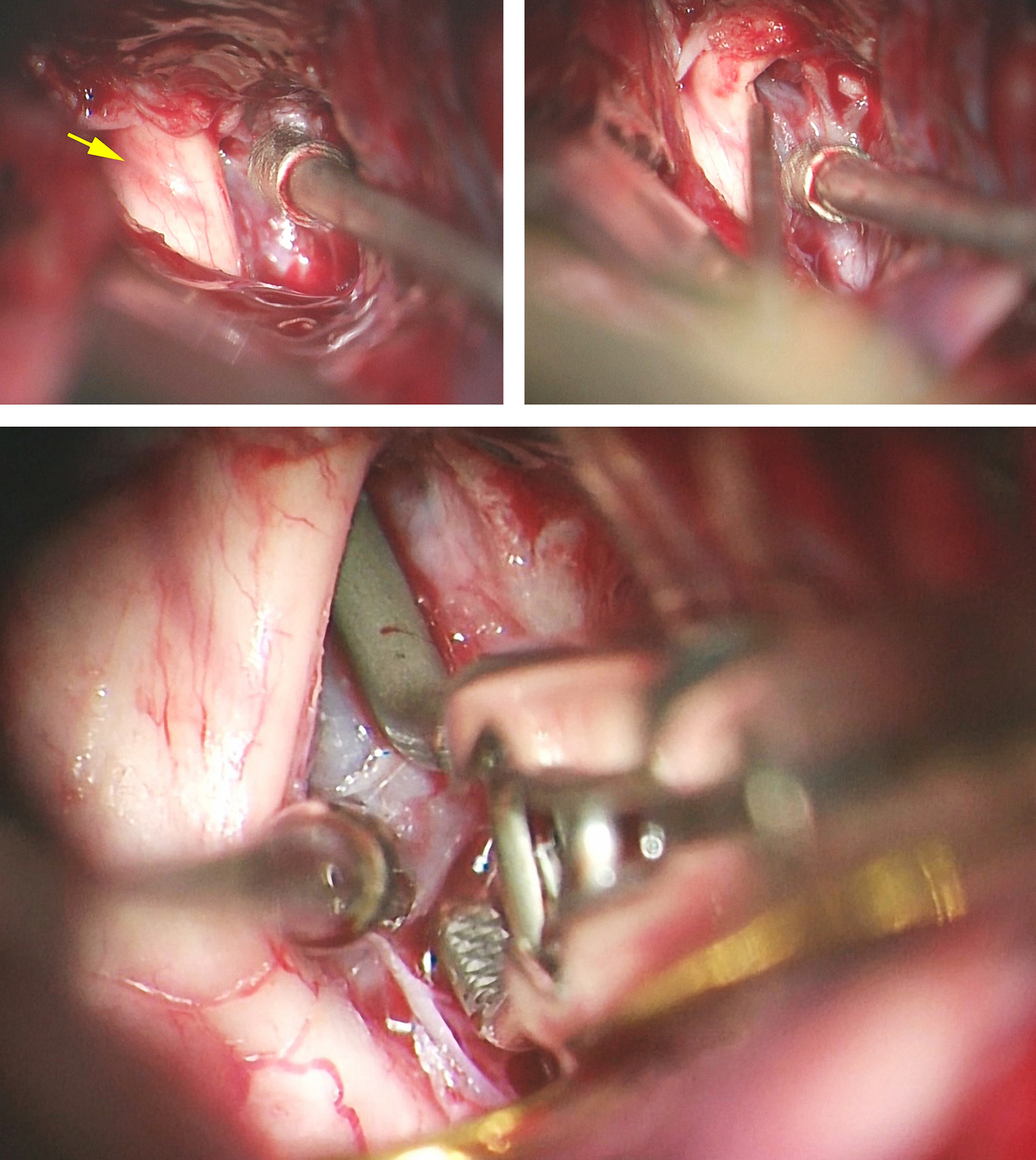 Figure 7: A large right-sided ophthalmic artery aneurysm (see Figure 1) was clip ligated using the suction-decompression technique. Note the discoloration on the optic nerve from the mass effect of the aneurysm (left upper image, yellow arrow) after the falciform ligament was incised. The suction-decompression technique provided the much needed deflation of the aneurysm so I could identify the anterior neck (right upper image) and apply the permanent clip (lower image).