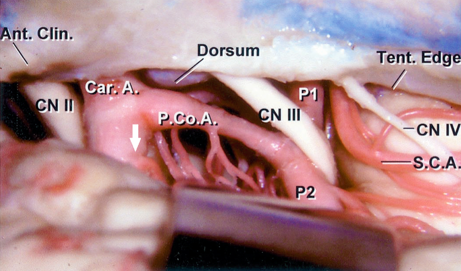 Figure 4: A right subtemporal view of the lateral ICA is shown. Note the relationship of the PCoA to the AChA takeoff (white arrow.) The anatomic location of the ICA-PCoA junction in relation to the oculomotor nerve is again indicated. Several thalamoperforating arteries along the course of the PCoA are shown (image courtesy of AL Rhoton, Jr.)