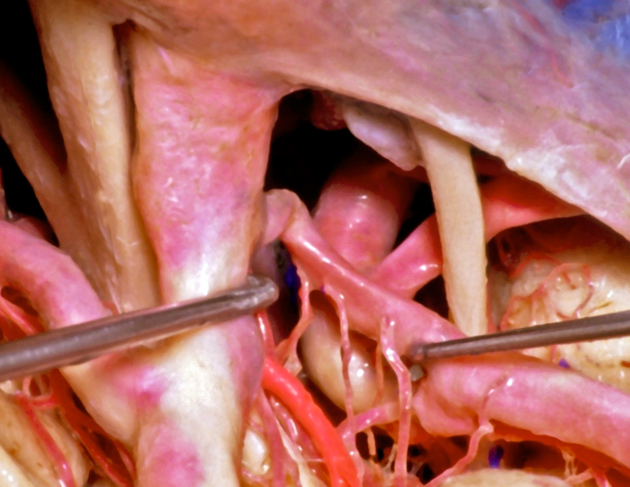 Figure 5: A lateral view across the posterior ICA demonstrates the anatomic relationships between the PCoA (mobilized with the right dissector,) its perforating vessels, and the AChA (in bright red.) The oculomotor nerve is visible (image courtesy of AL Rhoton, Jr.)