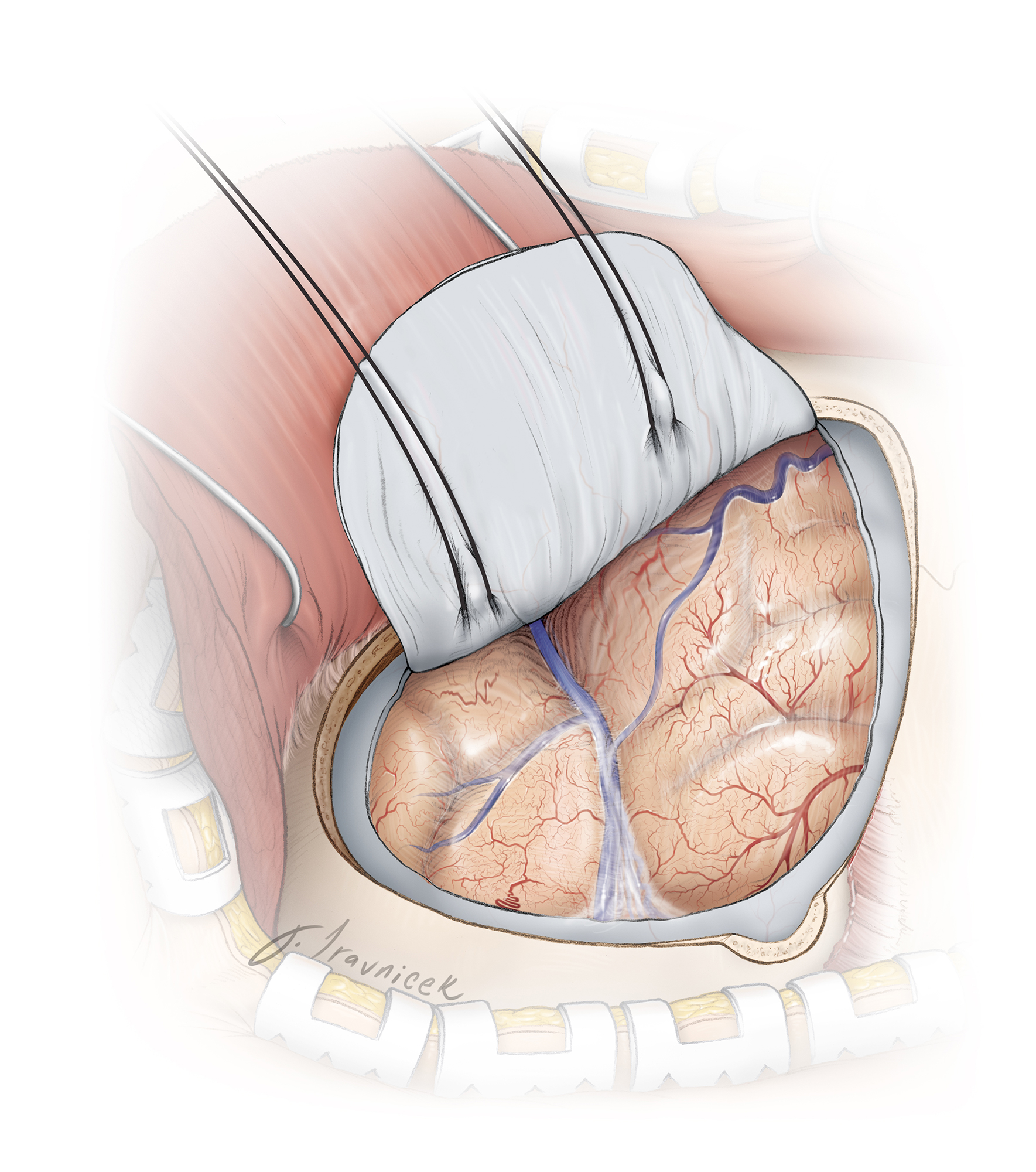 Figure 7: Initial intradural exposure is illustrated. Adequate sphenoid wing removal is evident when the dura can be mobilized flat over the orbital roof and along the anterior edge of the craniotomy.