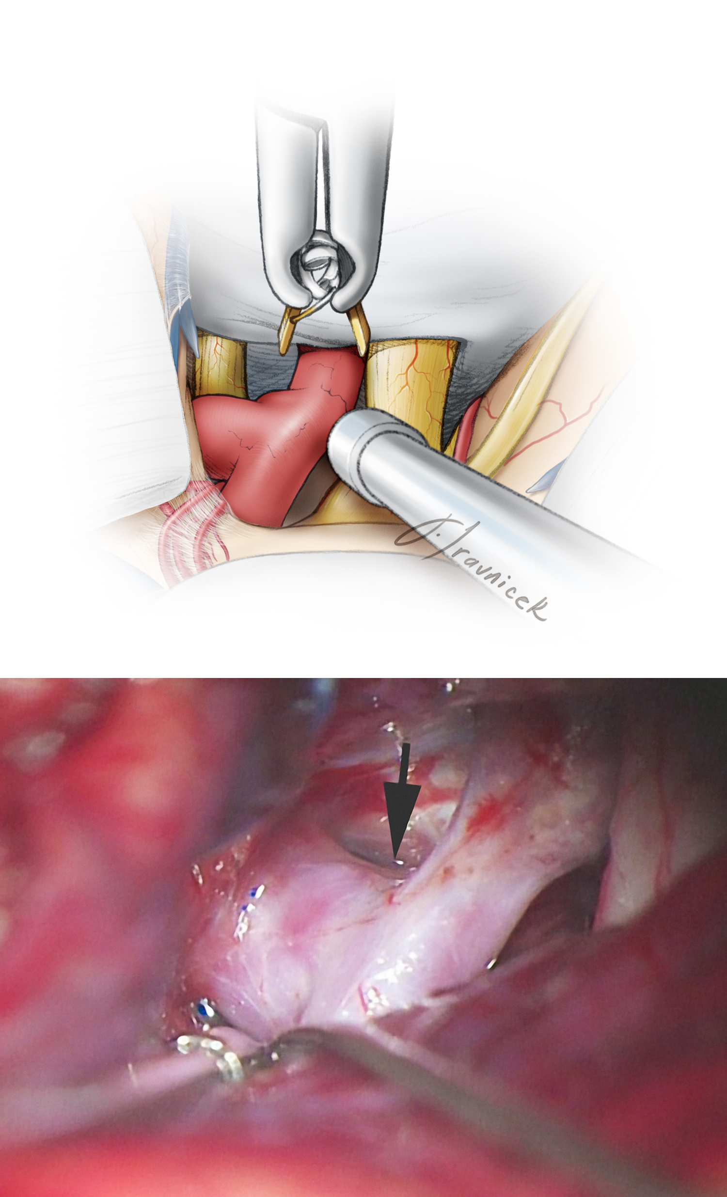 Figure 17: The origin of the PCoA is often apparent only as a small knuckle immediately inferior to the aneurysm sac (upper sketch.) The permanent clip is later placed between this knuckle (at the arrow, lower photo) and the true neck of the aneurysm. Temporary clip application is often necessary, especially for ruptured aneurysms, during the next steps of aneurysm neck dissection.