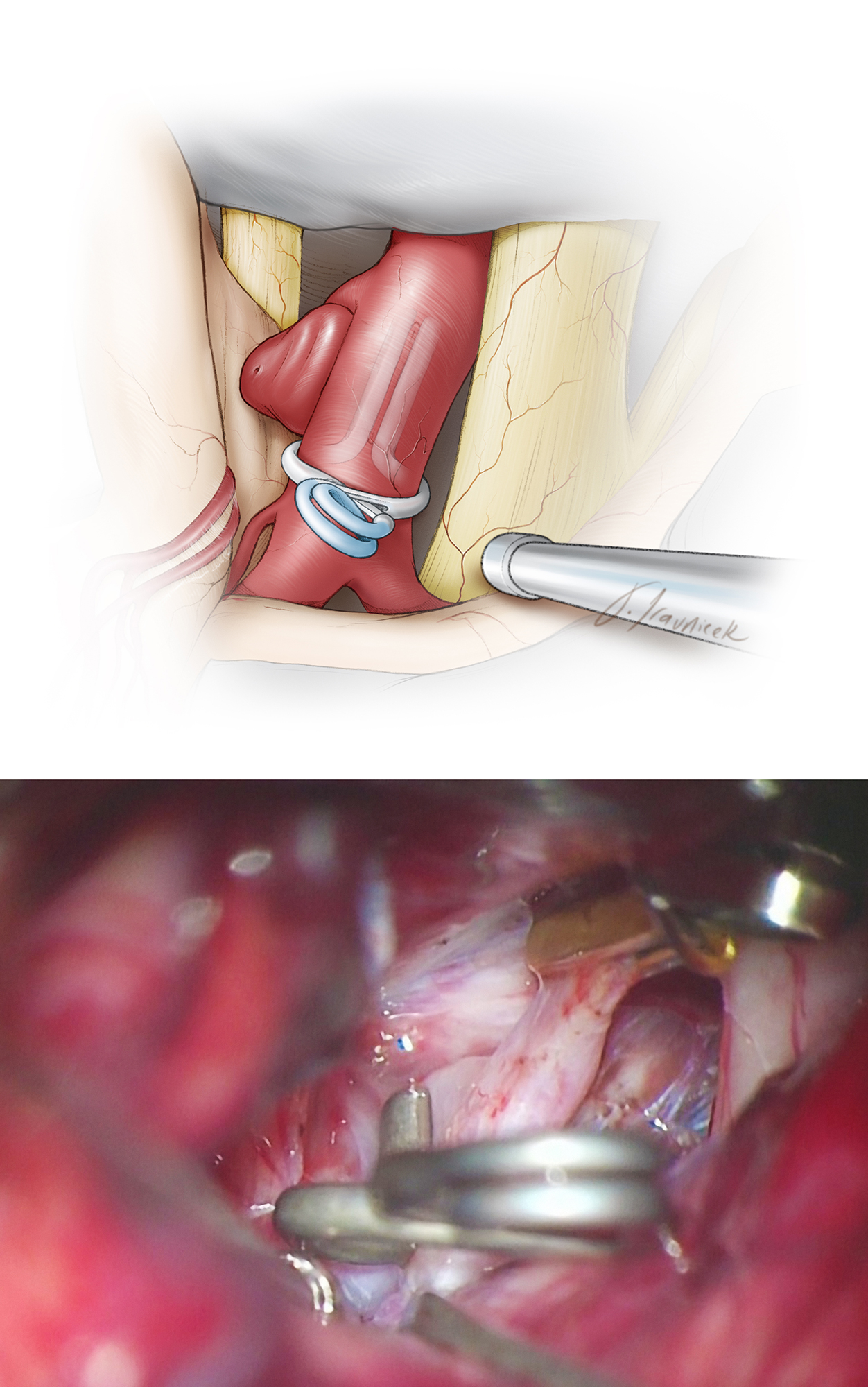 Figure 21: An operative view of the final clip construct for a posterior-projecting PCoA aneurysm. Care must be taken to ensure that neither the PCoA nor its medial thalamoperforators are inadvertently included in the clip blades. The tip of the blades should not compromise the PCoA's origin.