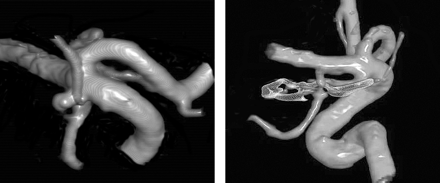 Figure 1: A typical AChA aneurysm is shown originating from the junction of the ICA and AChA (left image). The aneurysm arising from the posterior carotid wall, just distal to the PCoA origin is considered an AChA aneurysm and is typically more laterally projecting than PCoA aneurysms. Clip ligation is effective for complete exclusion of the aneurysm while maintaining the patency of the AChA (right image).