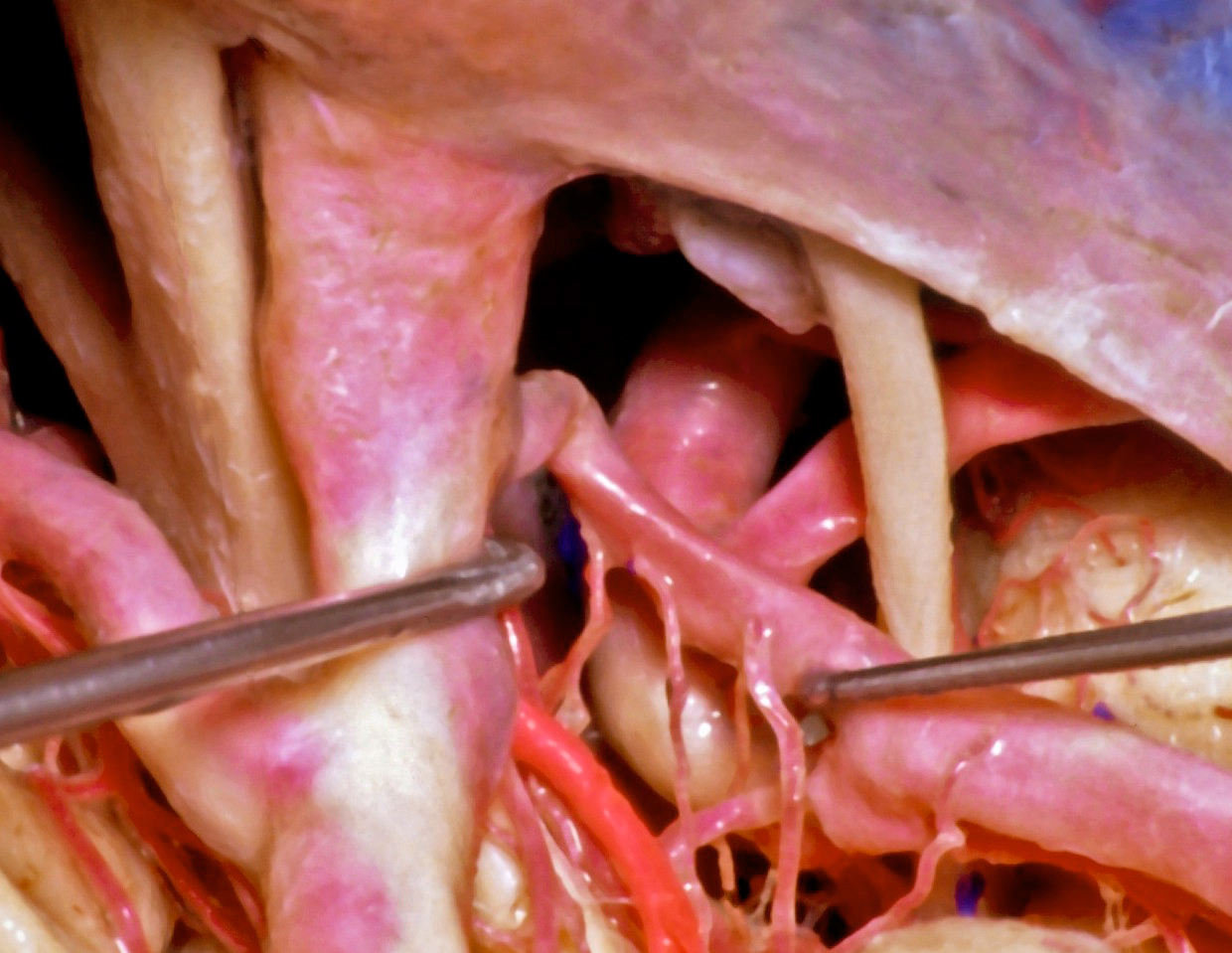Figure 2: A lateral nonoperative view across the posterior ICA demonstrates the anatomic relationships between the PCoA (mobilized with the right dissector,) its perforating vessels, and the AChA (in bright red.) The oculomotor nerve is visible (image courtesy of AL Rhoton, Jr.)