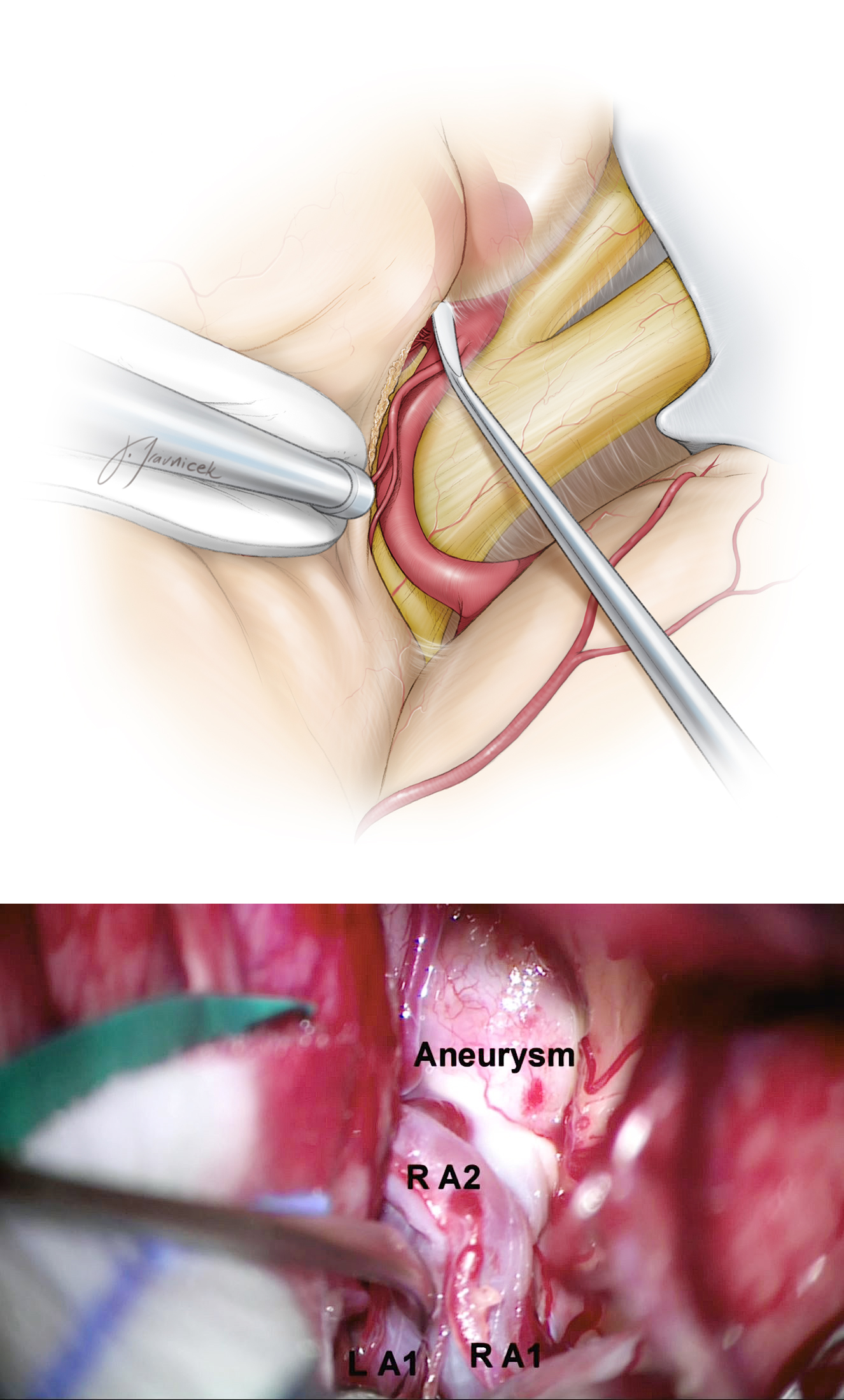 Figure 9: The ACoA complex needs to be dissected on its ventral aspect. The projection of the aneurysm dome affects the particular steps of dissection. In this illustration, the contralateral A1 is prepared for temporary clipping, and clipped only if necessary. The lower intraoperative photo demonstrates careful inspection of the relevant vessels.