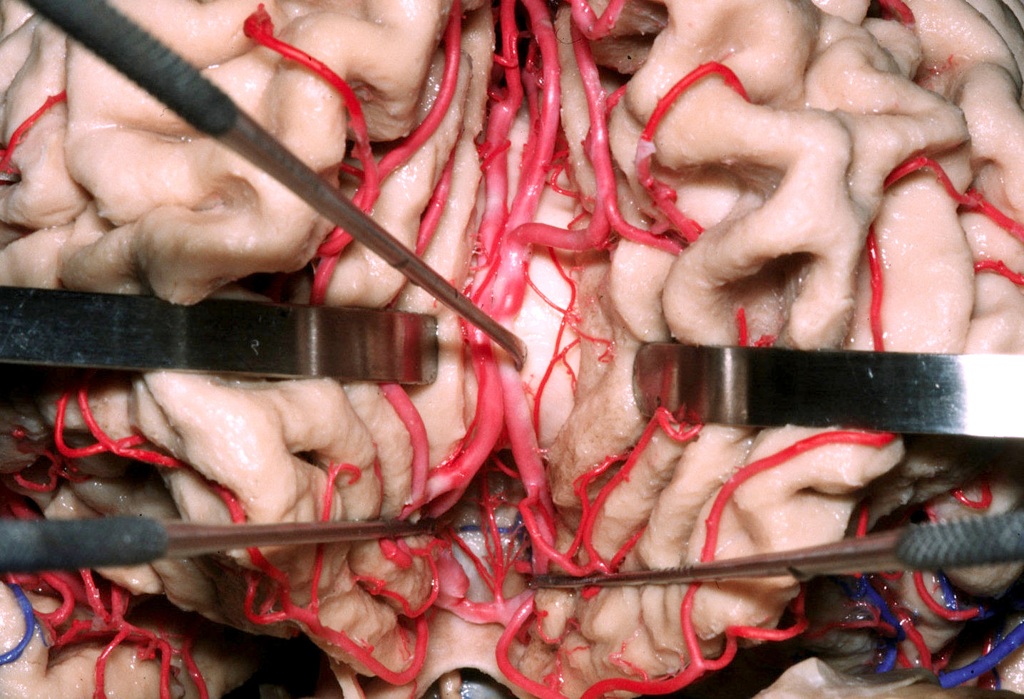 Figure 2: The anterior cerebral artery (ACA) arises from the bifurcation of the internal carotid artery and courses rostromedially dorsal to the optic nerve as the A1 segment. The ipsilateral and contralateral A1 segments run together and connect via the ACoA. The pericallosal arteries are defined as the segments of the ACA distal to the ACoA. They continue superiorly into the interhemispheric fissure, upward on the medial surface of the hemisphere, and then course posteriorly on the superior surface of the corpus callosum, staying mostly below the lower margin of the falx (Image courtesy of AL Rhoton, Jr).