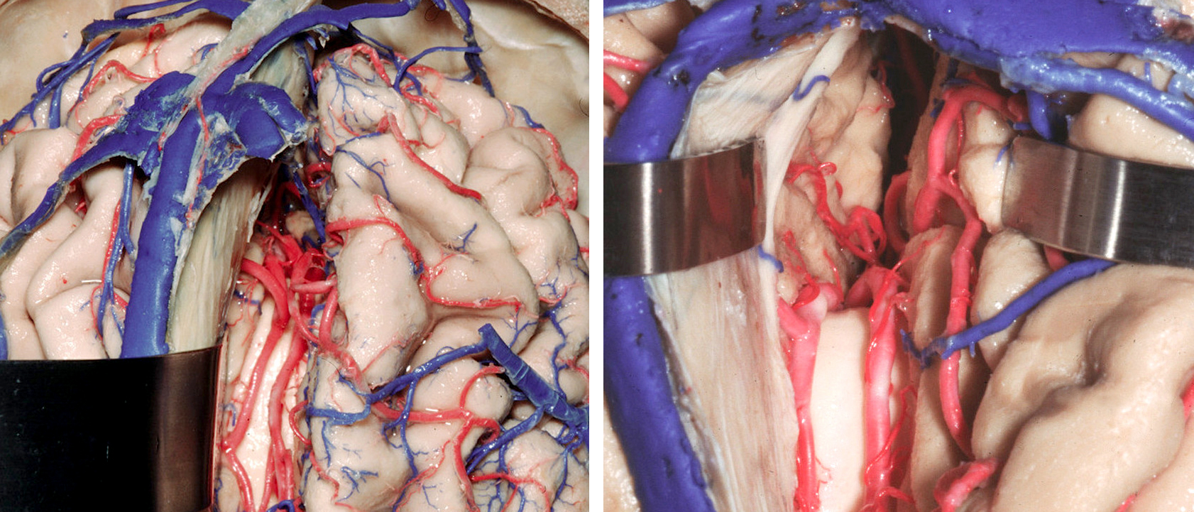 Figure 4: The callosomarginal artery is a major branch of the distal ACA, the most common location for pericallosal artery aneurysms, and its dissection guides the surgeon to the aneurysm. It arises distal to the frontopolar artery and the anterior internal frontal artery, and ascends dorsally within the callosomarginal sulcus. Branches of this artery supply the paracentral lobule and parts of the cingulate gyrus. This artery varies inversely in size with that of the distal pericallosal artery system and may be a distinct vessel or consist of a group of several ascending vessels that emerge individually from the pericallosal artery. The interhemispheric operative corridor is shown (Image courtesy of AL Rhoton, Jr).