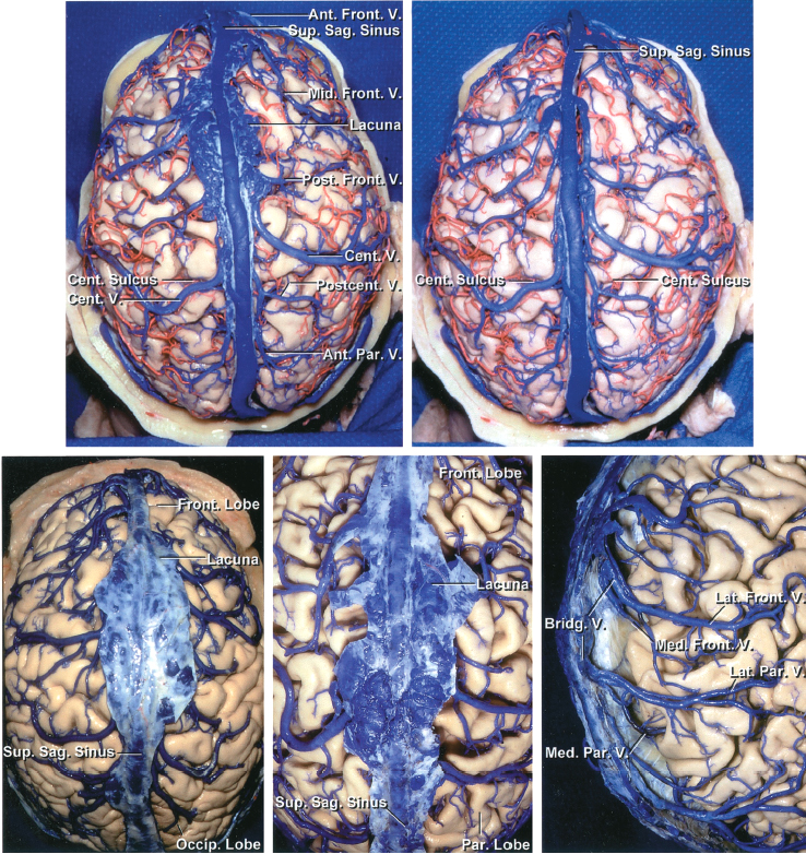Figure 5: A variable number of parasagittal cerebral veins, usually 10 to 15, drain blood from the cortex and medial hemispheres and join the superior sagittal sinus. These veins enter the sinus by coursing obliquely forward after freely bridging a 1-2 cm gap between their most distal attachment to the pia-arachnoid and their entry into the sinus across the subdural space (Image courtesy of AL Rhoton, Jr).