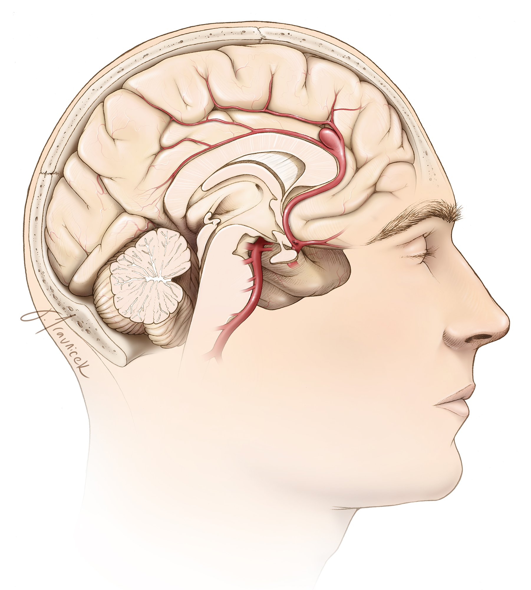 Figure 6: The typical location of a pericallosal aneurysm over the genu is shown. Securing proximal control via the interhemispheric route requires specific tenets. Resection of a small section of the genu is often necessary for this purpose.