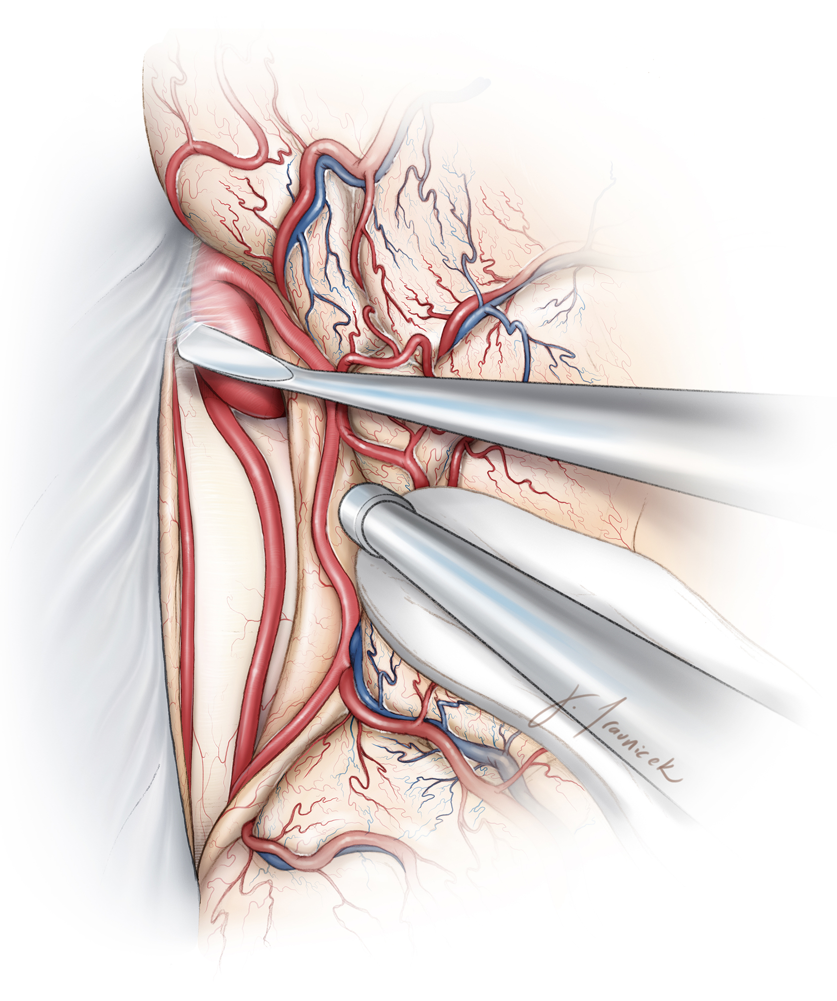Figure 9: After the pericallosal arteries are identified, dissection proceeds anteriorly. It is important to stay close to the arteries and avoid wandering over the aneurysm dome. The dissection is pursued on the side of the aneurysm rather than directly on the dome. The projection of the aneurysm on preoperative imaging guides the operator to avoid the dome.