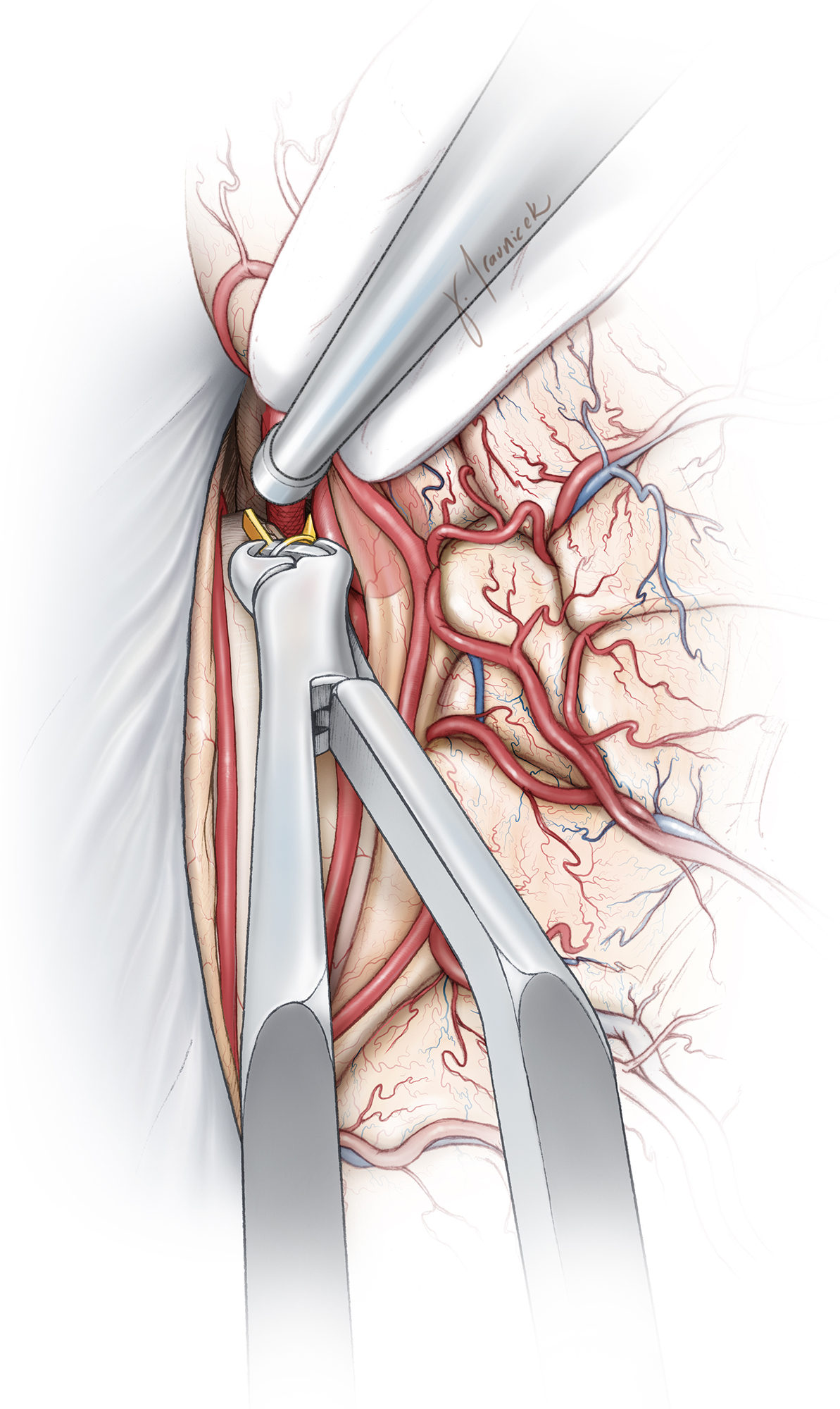 Figure 11: It is imperative to secure proximal control over the ipsilateral A2 before further dissection is contemplated around the neck. I leave the cortex overlying the aneurysm dome intact to avoid premature rupture. Aggressive retraction and manipulation of the surrounding tissues should be avoided to prevent such a rupture. The location of the dome should be kept in mind during subsequent operative maneuvers. Because vascular dissection is conducted in the retrograde distal-to-proximal direction, the lack of immediate proximal control can be unsettling to the surgeon.