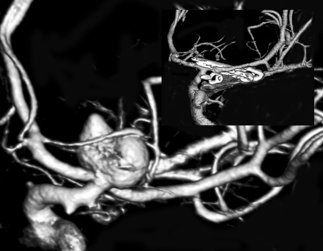 Figure 1: A classic ICA bifurcation aneurysm is demonstrated. Note the perforating vessel draping over the dome. Clip exclusion was accomplished via tandem clipping (inset). The small anterior choroidal aneurysm was also clipped in this patient.