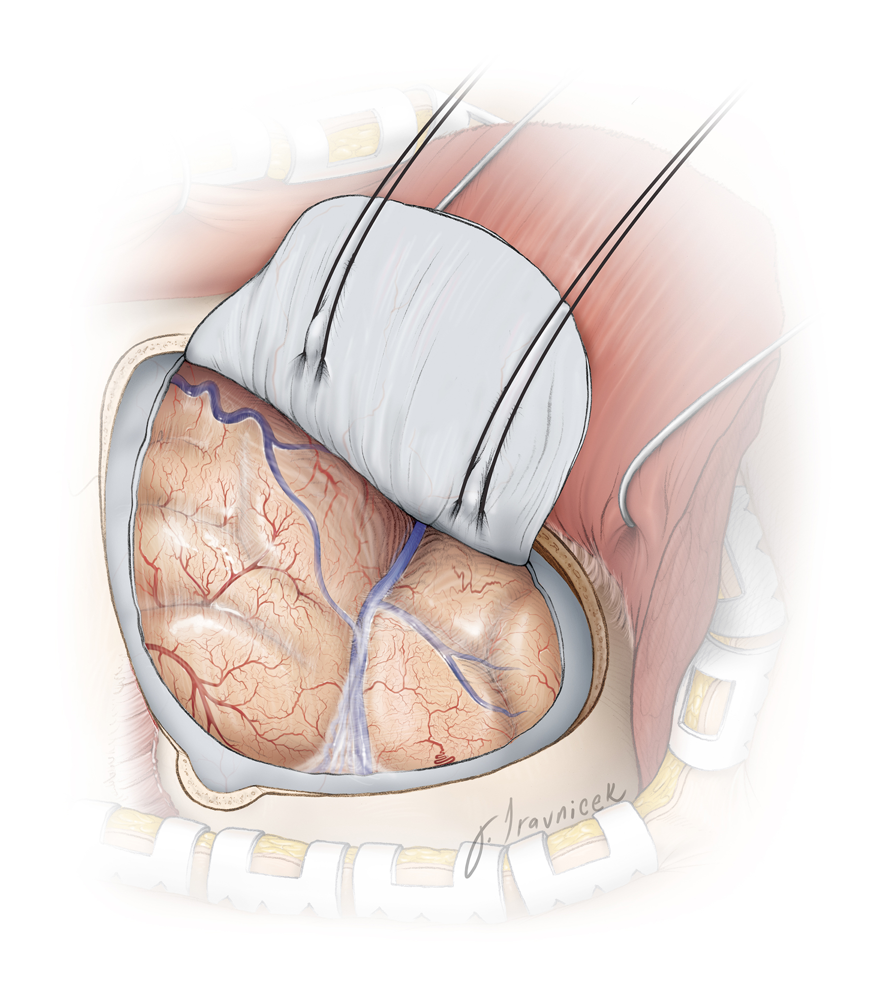 Figure 4: The breadth of the pterional craniotomy for this aneurysm type is illustrated. Significant frontal extension of the craniotomy is typically unnecessary. The lateral sphenoid wing is resected to the level of the superior orbital fissure.