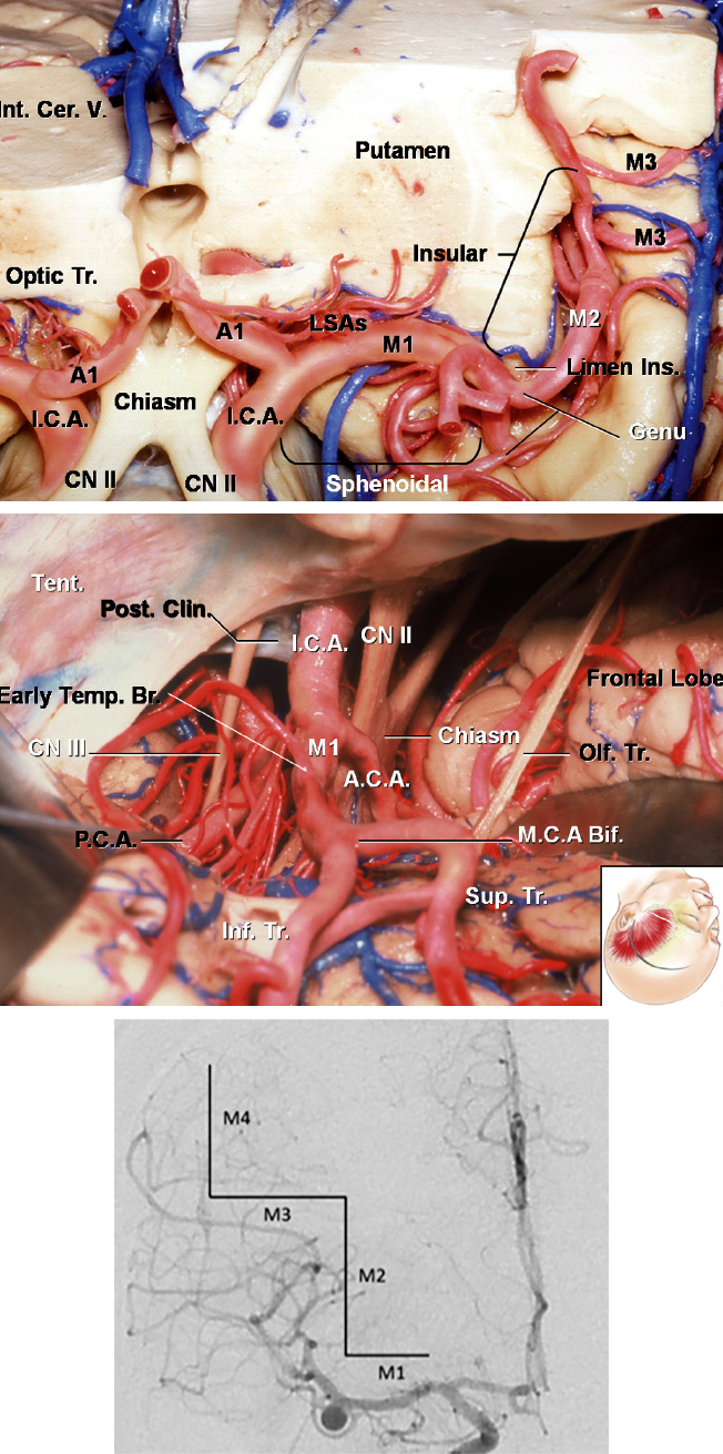 Figure 2: The MCA is divided into four segments which travel through the Sylvian fissure in a stepwise angular fashion as follows: M1 (sphenoidal segment), M2 (insular branches), M3 (opercular branches), and M4 (cortical branches). The upper images illustrate the MCA anatomy via a left-sided approach. The length of the M1 segment can be quite variable. The short M1 segments significantly increase the depth of the operative field and add to the technical complexity of the operation; the lenticulostriate perforators are placed at increased risk as they may originate from the bifurcation or proximal M2 trunks. The anteroposterior angiogram (bottom image) shows the MCA divisions in a patient with an MCA aneurysm.
