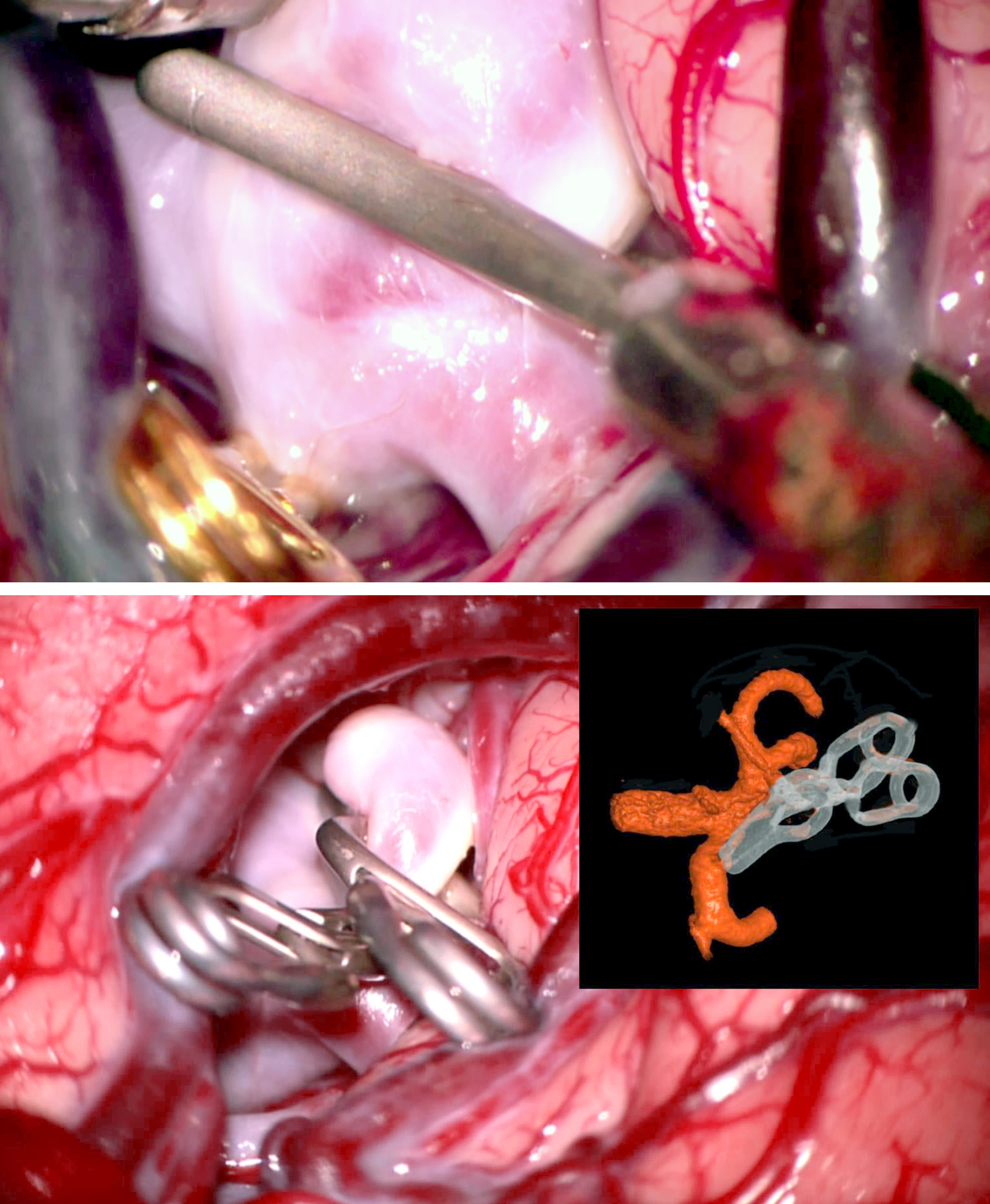 Figure 12: A typical broad-based MCA aneurysm was clipped using a curved clip parallel to the axis of the M2's. The second tandem fenestrated clip provides additional support for the closure of the distal neck.
