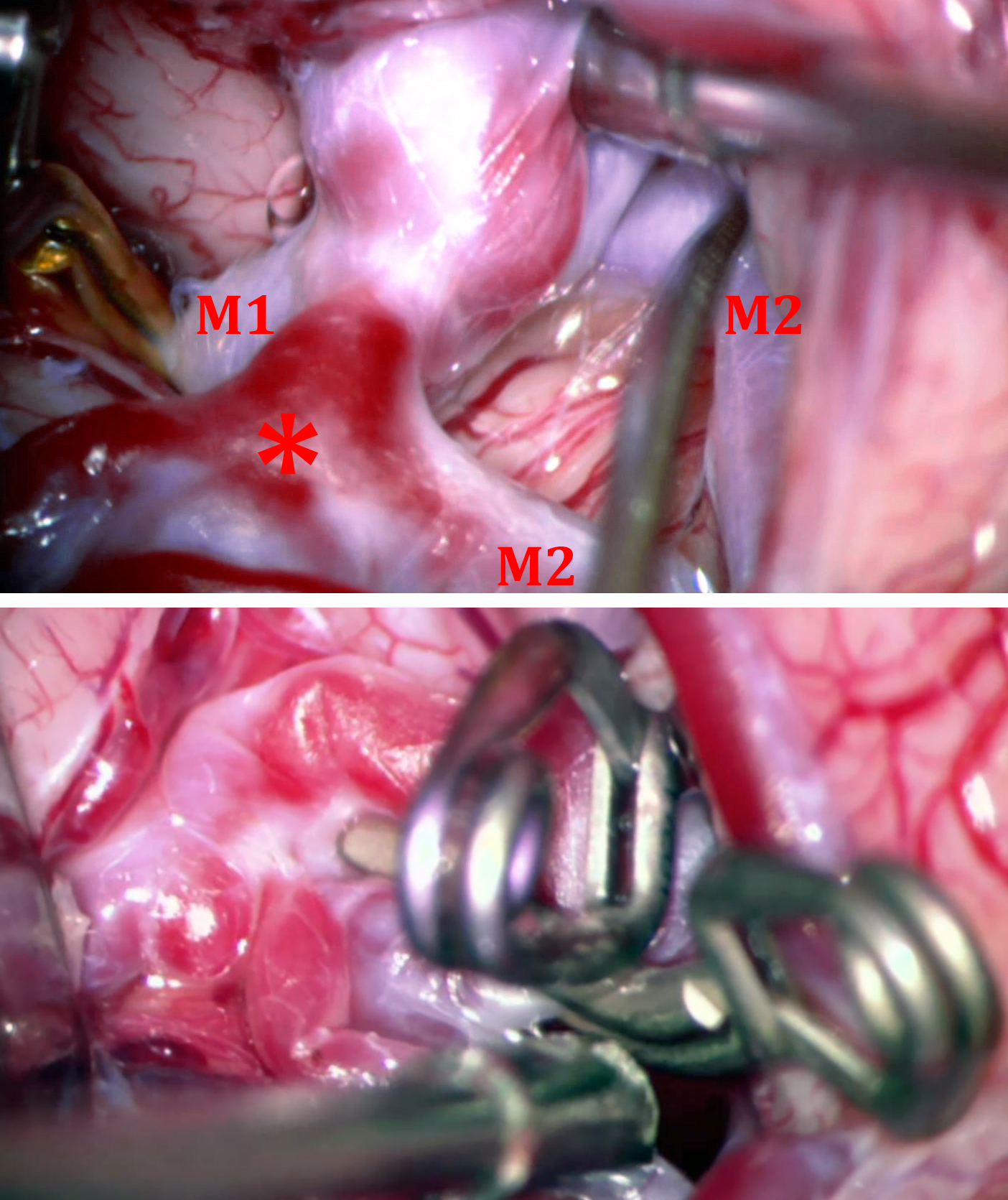 Figure 14: Note another vascular configuration at the right MCA bifurcation. The temporal M2 is covered by the sac. The early division of the frontal M2 (*) harbors a second aneurysm. This early M2 bifurcation can be mistaken for the M1 bifurcation. Two clips were used for obliteration of both aneurysms.