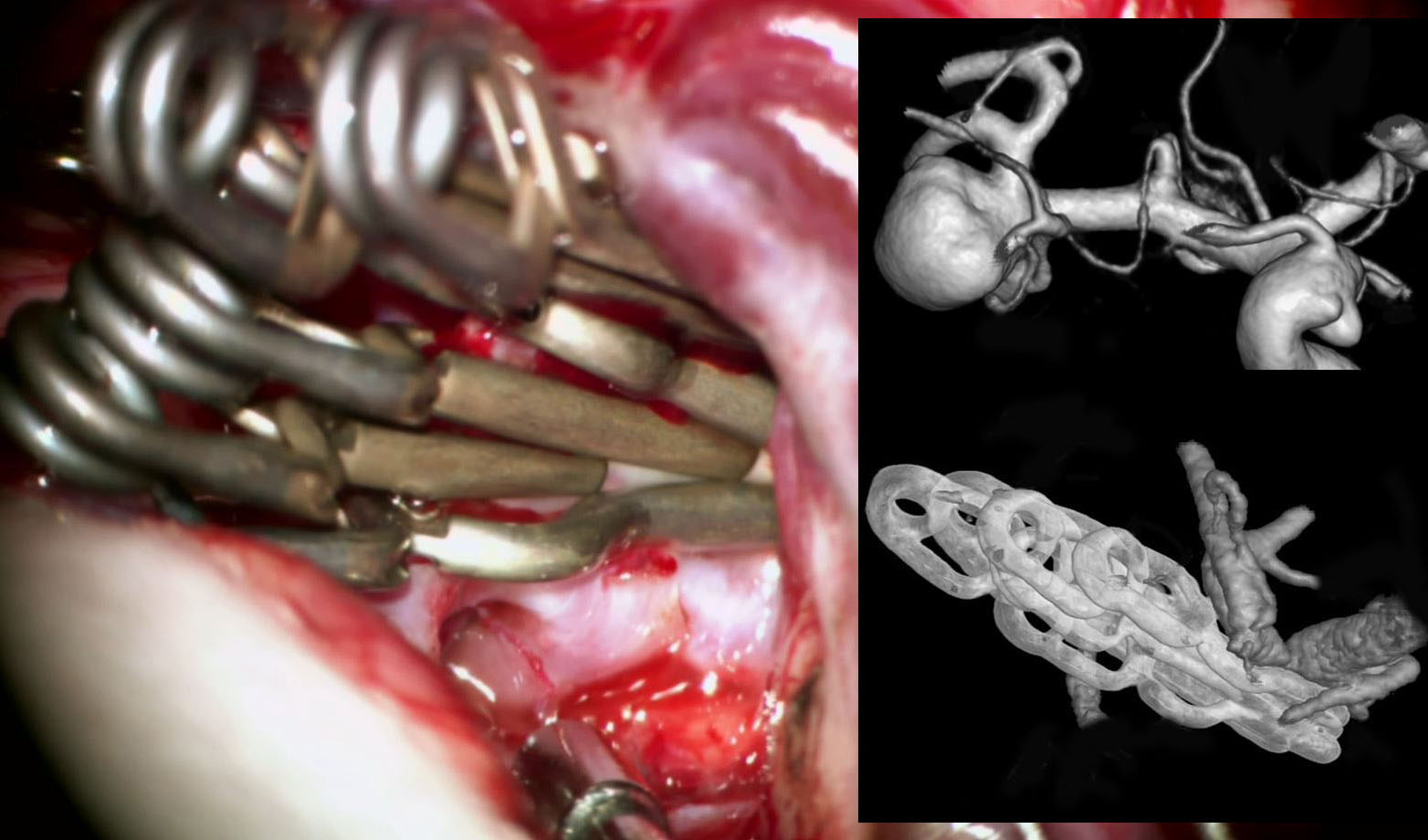 Figure 17: Large atherosclerotic aneurysms often require multiple clips for their exclusion as the calcium in the neck interferes with the closure of the initial clip blades.