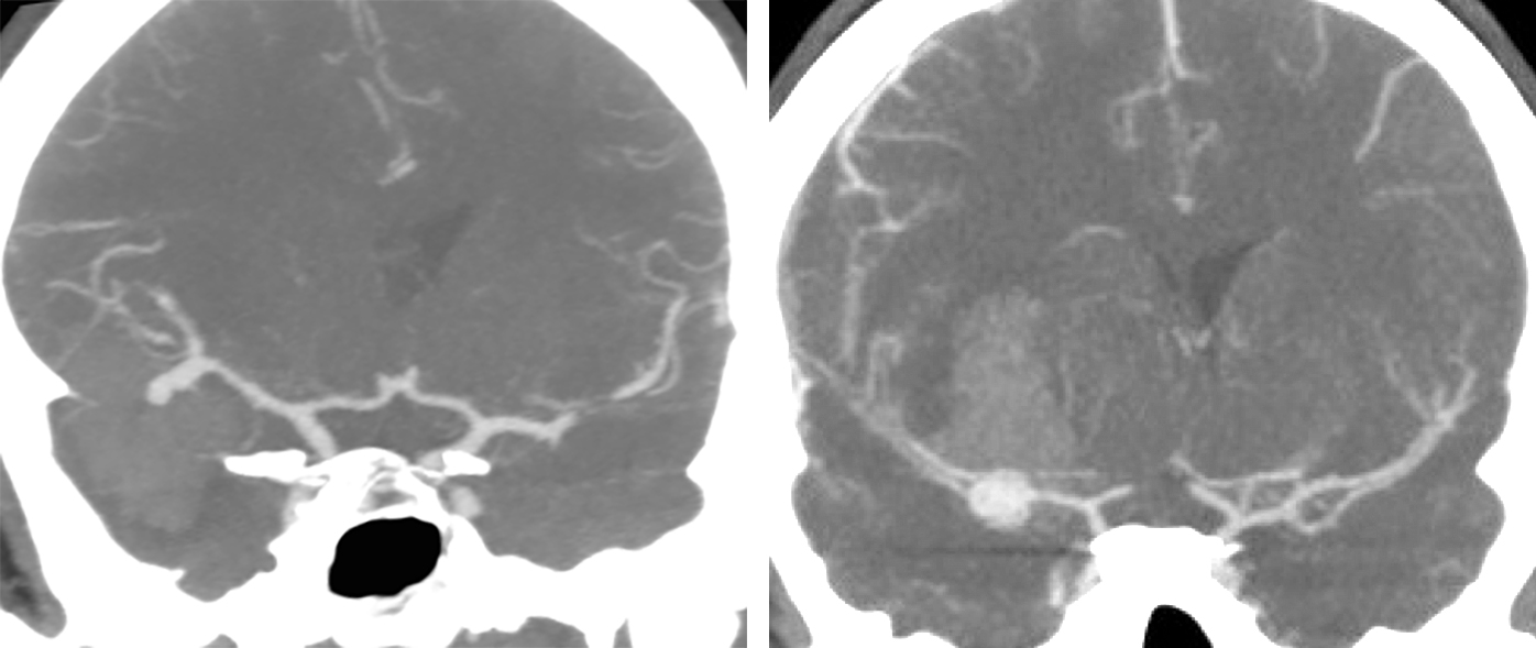 Figure 1: Two MCA aneurysms associated with large temporal (left) and frontal (right) intracerebral hematomas are demonstrated. Premature intraoperative rupture during the predissection phase in the latter case led to unexpected bleeding through the inferior frontal gyrus.