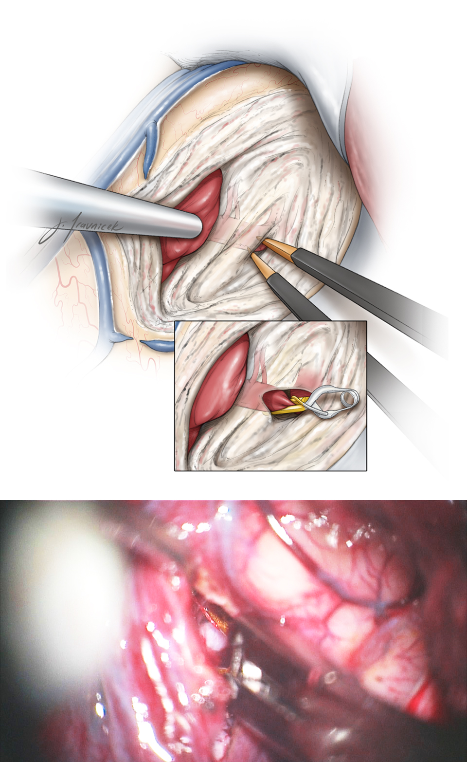 Figure 5: I remove a small section of the medial aspect of the middle temporal gyrus to find the M1 through the arachnoid layers of the Sylvian fissure. A temporary clip secures proximal control (inset and lower intraoperative photo).