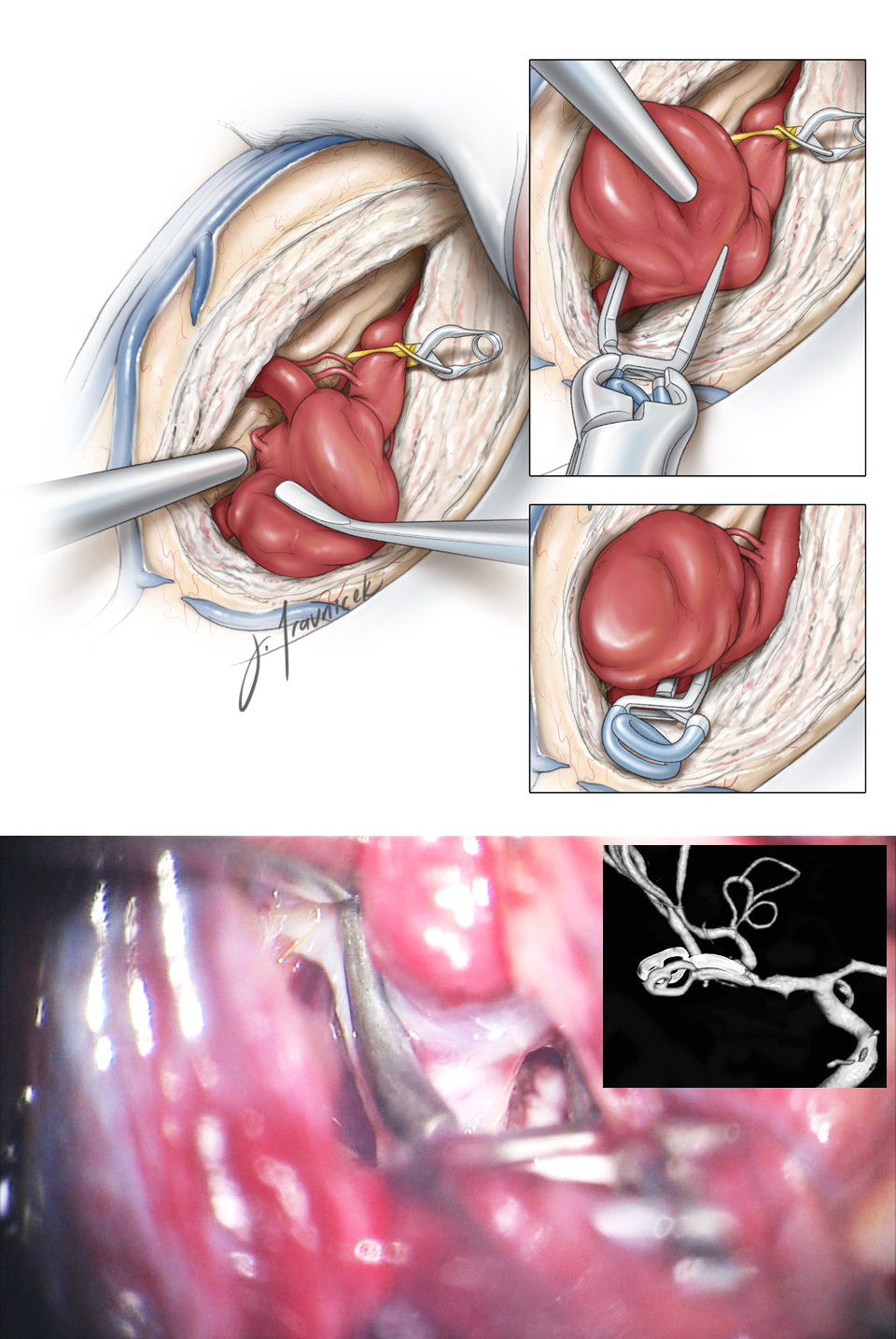 Figure 6: Circumdissection from distal M1 toward proximal M2 trunks discloses the pathoanatomy of the aneurysm. Lateral lenticulostriate arteries are identified and protected. Straight or curved clips (lower intraoperative photo) are quite effective for excluding most aneurysms (inset images.)