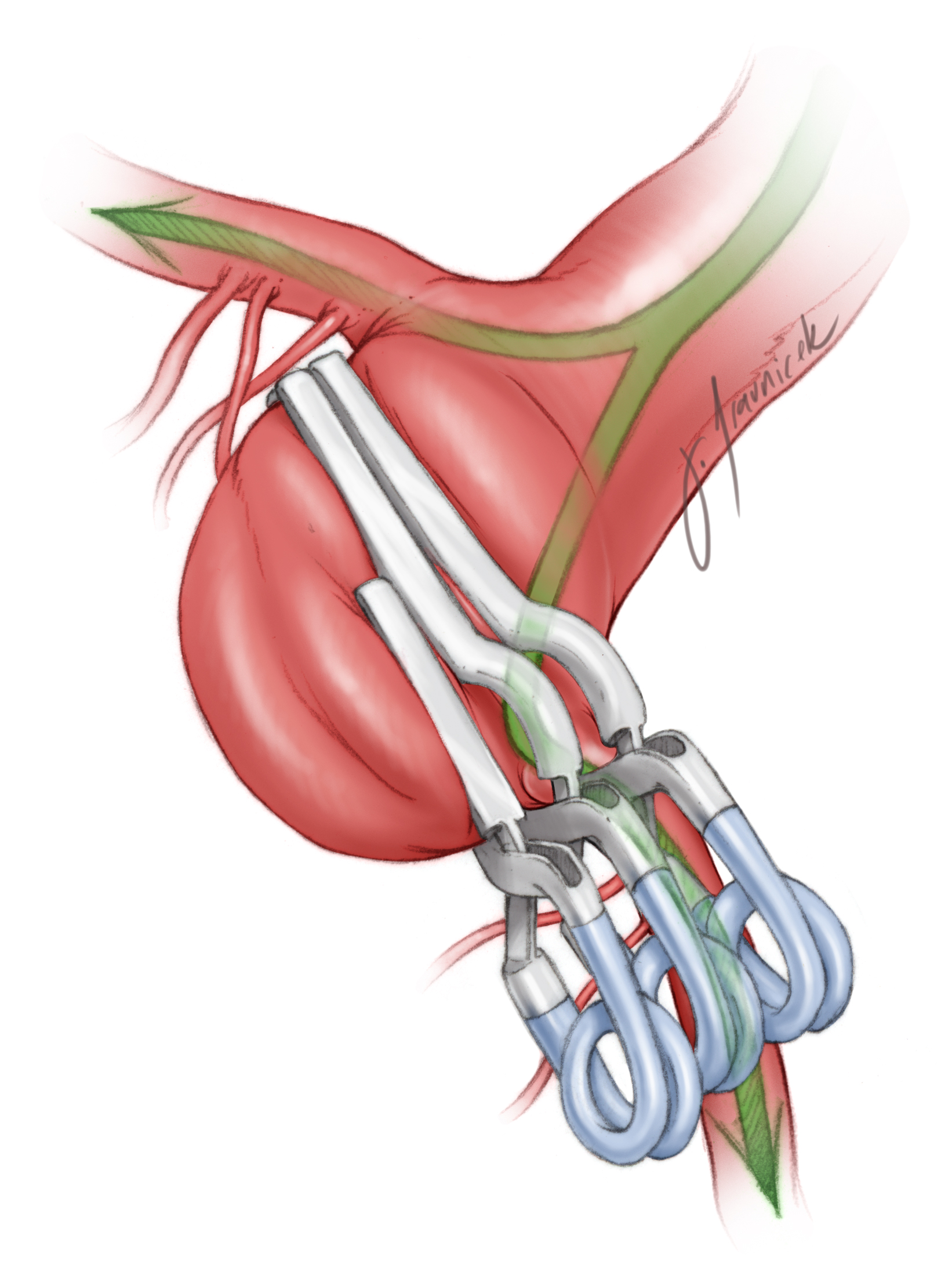 Figure 18: A basilar artery aneurysm is clipped with a tandem overstacking method to allow for retrograde flow into the efferent P1 segment of the PCA. The blood flow is indicated with the green arrows. The aneurysm is first clipped using a fenestrated clip on its proximal neck. A second fenestrated clip is placed just distal to the first one, creating a lumen for blood flow. Finally, a simple clip is placed just distal the second fenestrated clip, rerouting the flow into the efferent P1 segment rather than the dome.